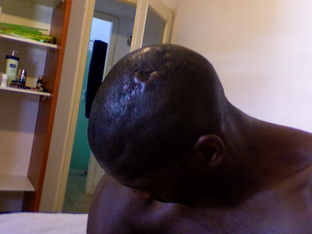 Pus Filled Bumps On Scalp, Itchy Scalp Red Bumps, Dry Itchy Scalp With Red Bumps, Scalp Bumps Itchy