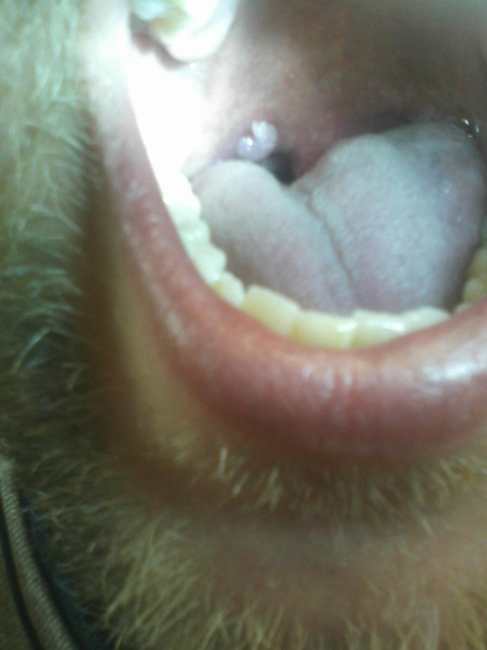 Flap At Back Of Throat 94