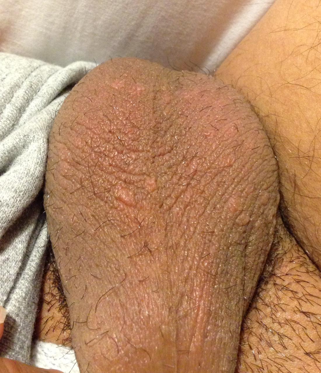 genital herpes Frederiksholms channel 29