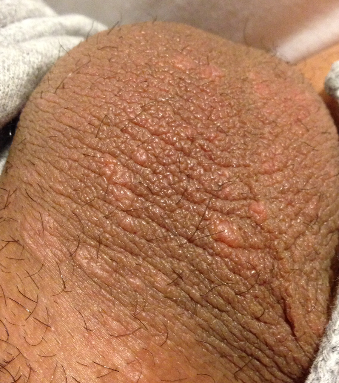 Eczema on Scrotum - Dermatology - MedHelp