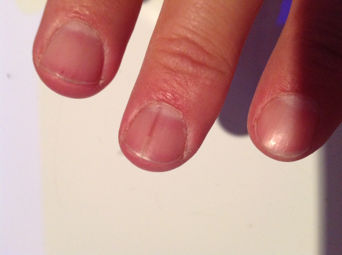Темные полосы на ногтях рук причины
