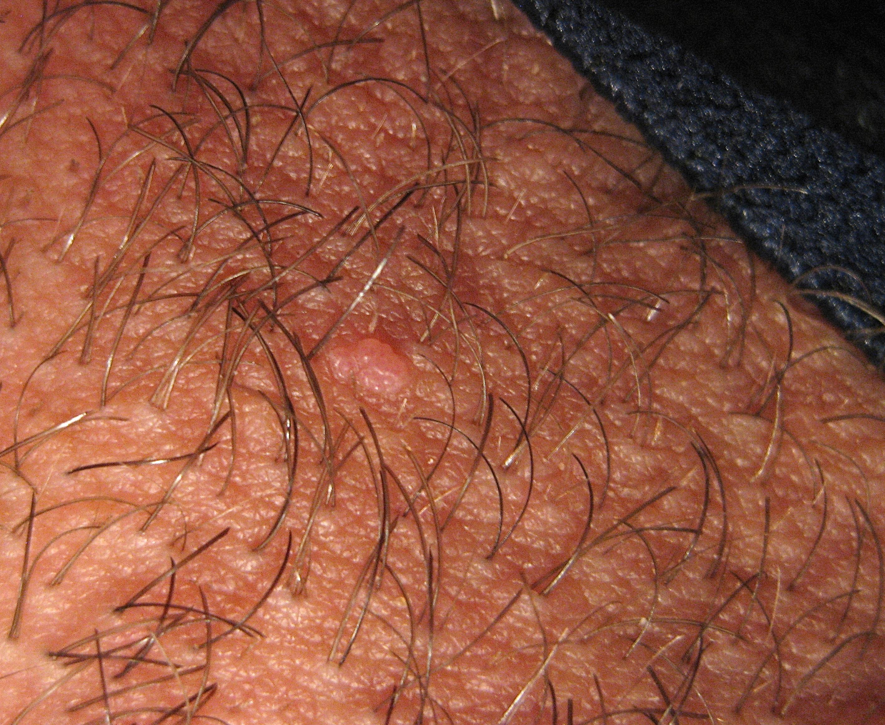 Molluscum contagiosum - uptodate.com