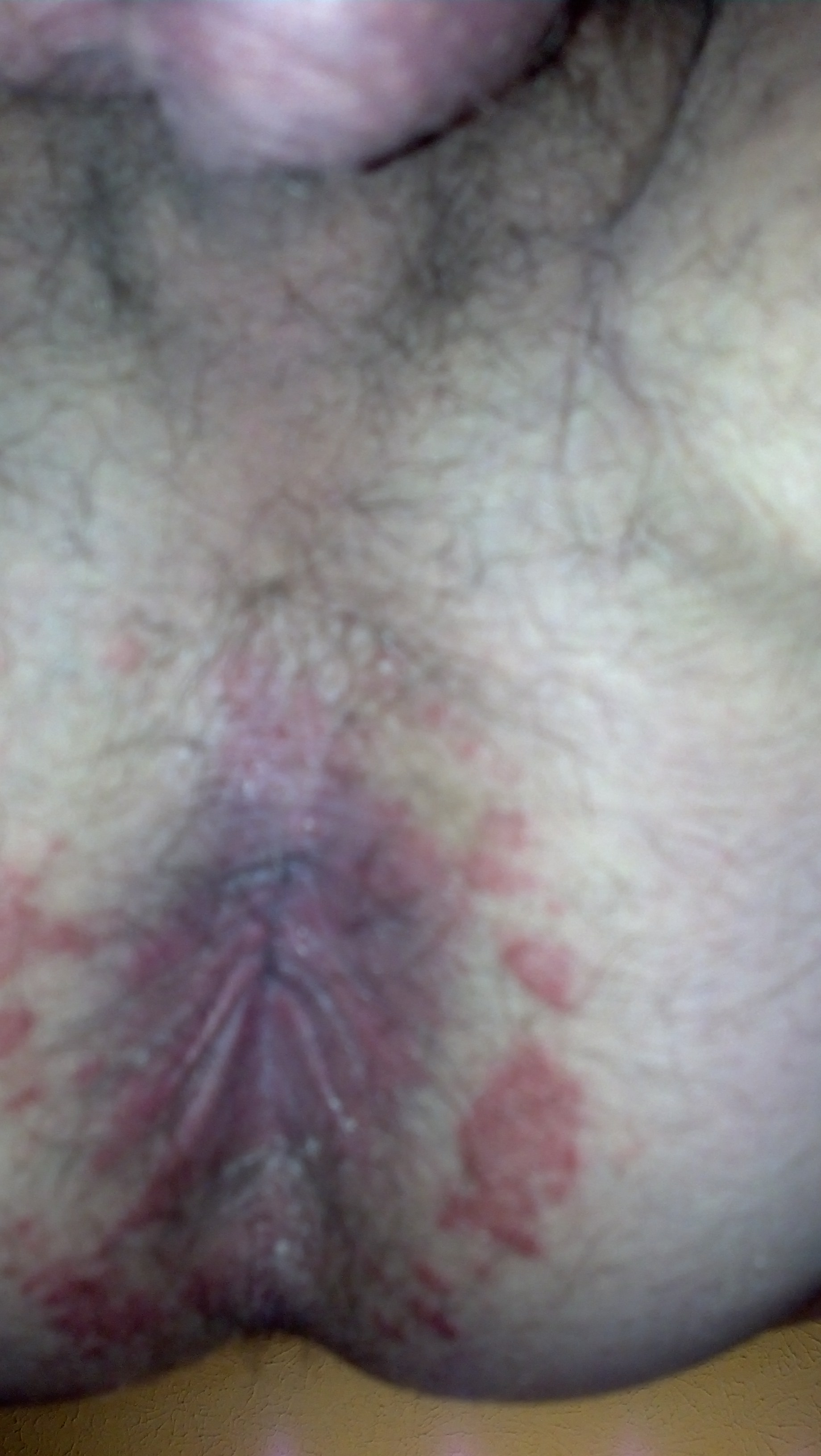 anal burning itching induration