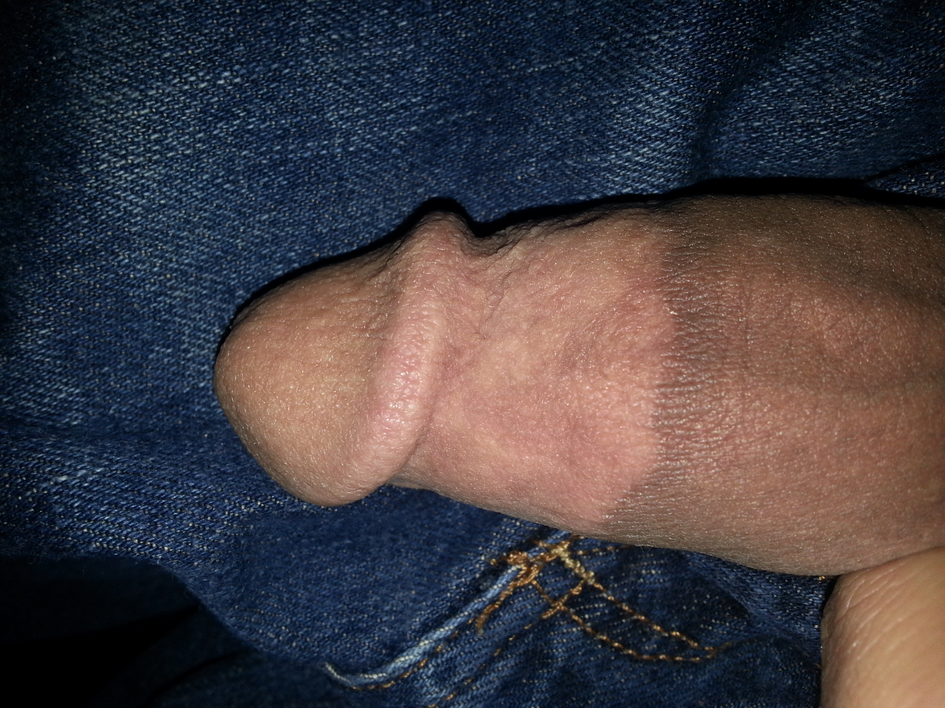 Discoloration of penis skin