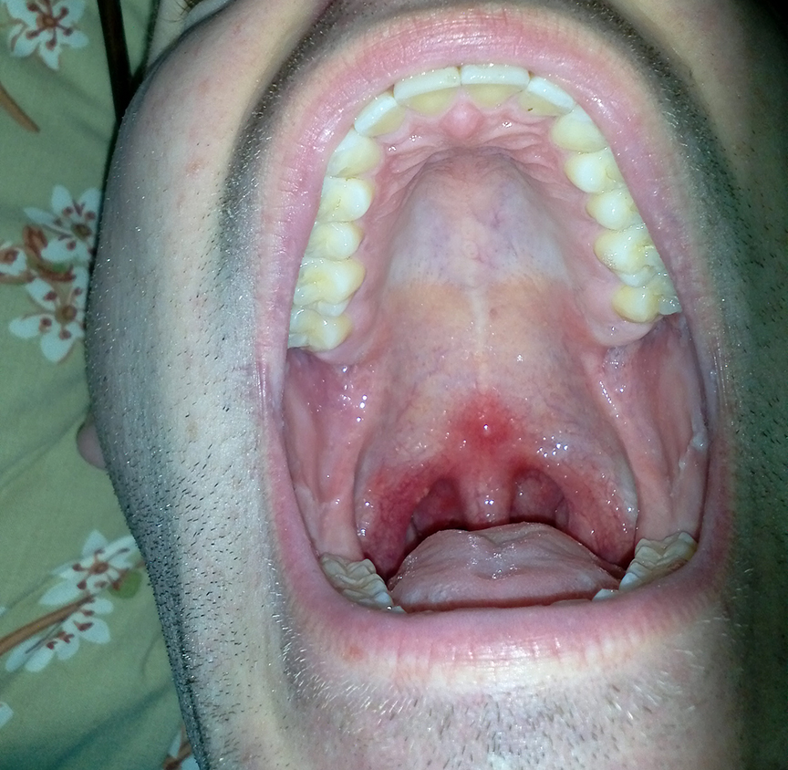 Pictures of herpes throat