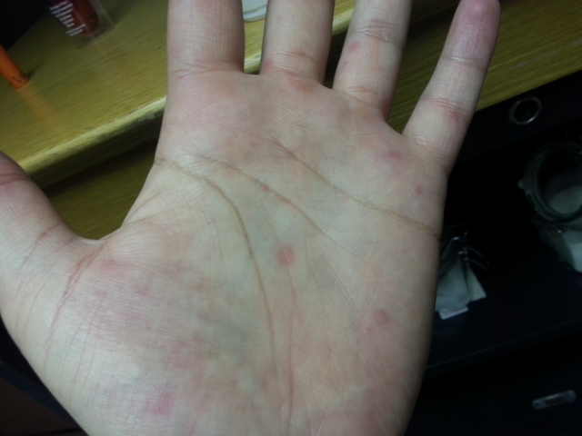 Doctor insights on: Red Spots On The Palms Of My Hands
