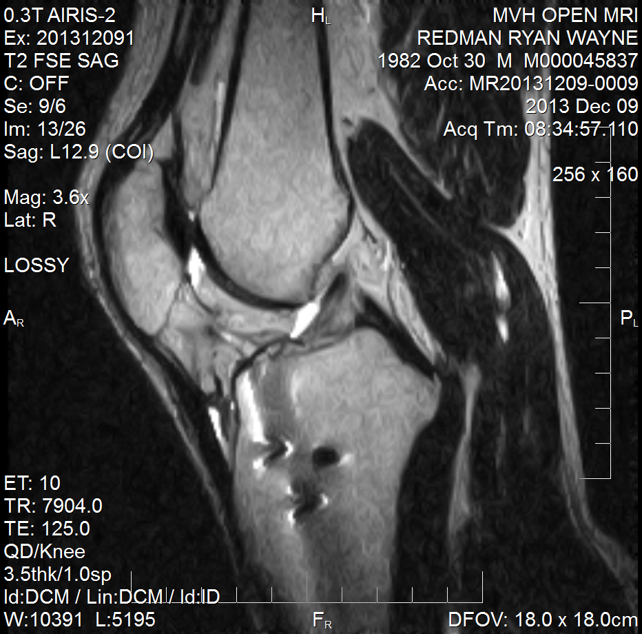 practice acl problem answers Doctor answers on symptoms, diagnosis, treatment, and more: dr khan on living with torn acl: our protocol calls for 6 months of physical therapy, after surgery, before being released to all sports.