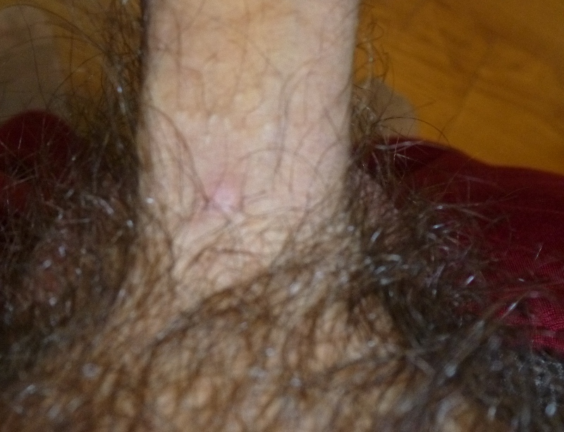 4 large red bumps on penis - Dermatology - MedHelp