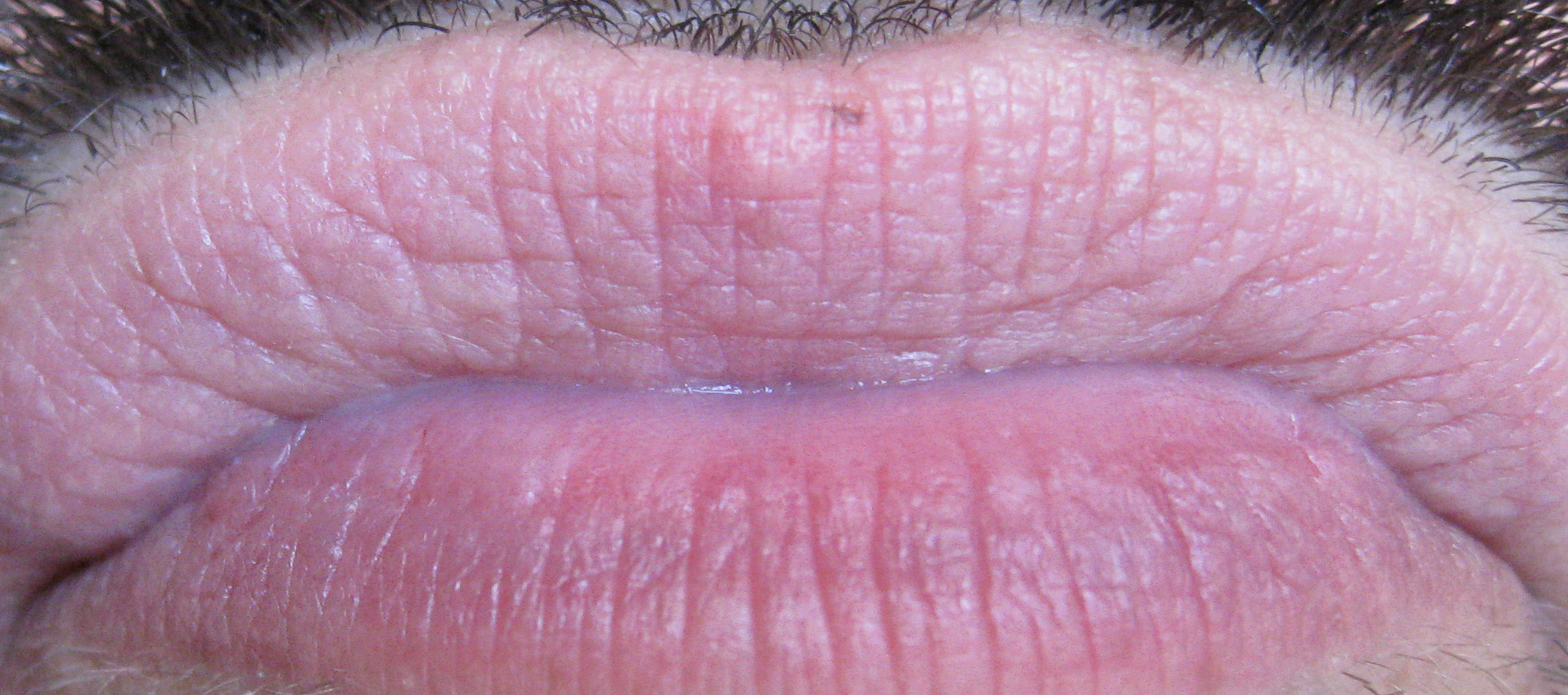 bumps in vaginal lips lips near the inside im 13 and since i have lips ...