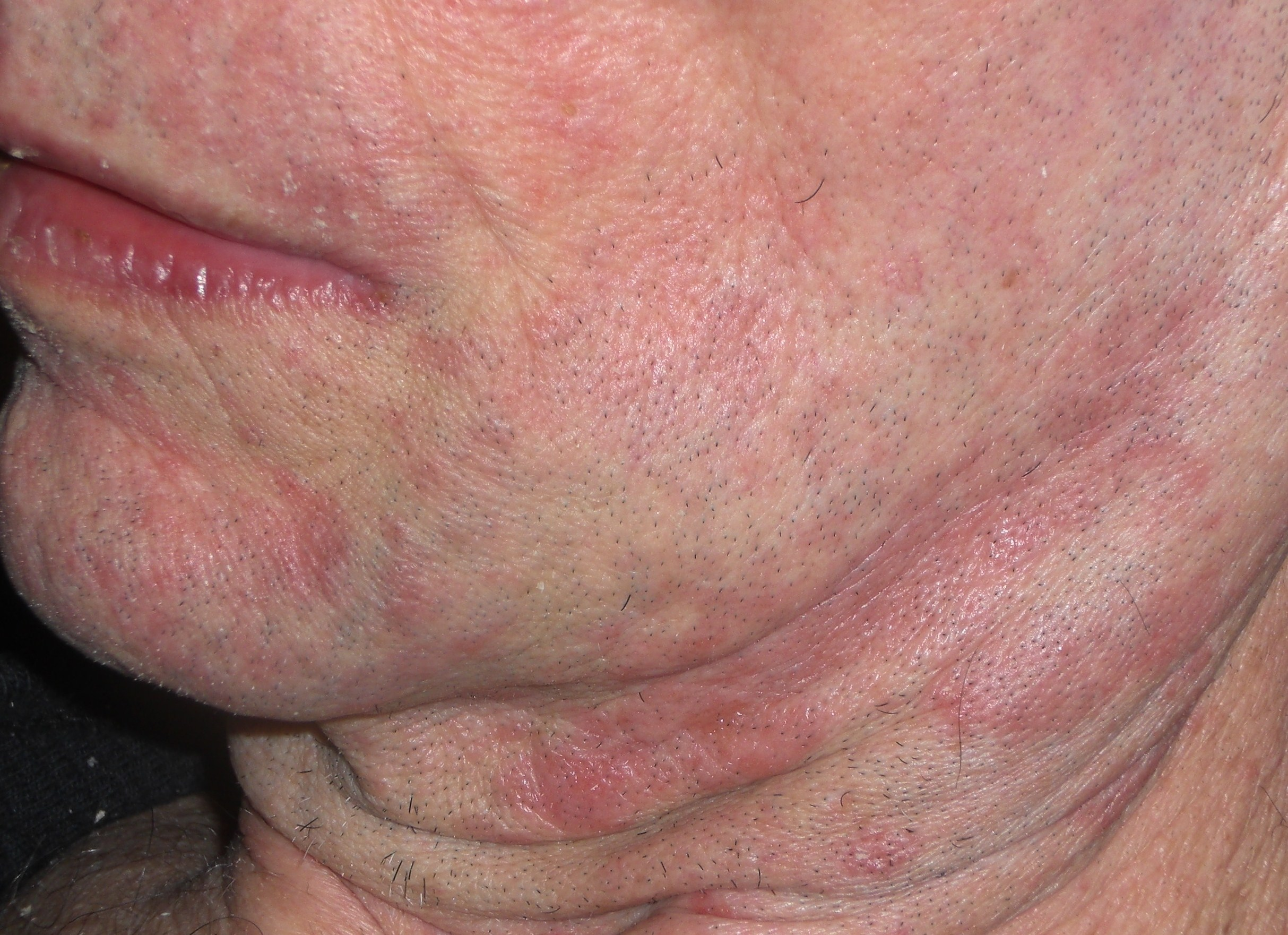 Seborrheic Dermatitis in Adults: Condition, Treatments ...