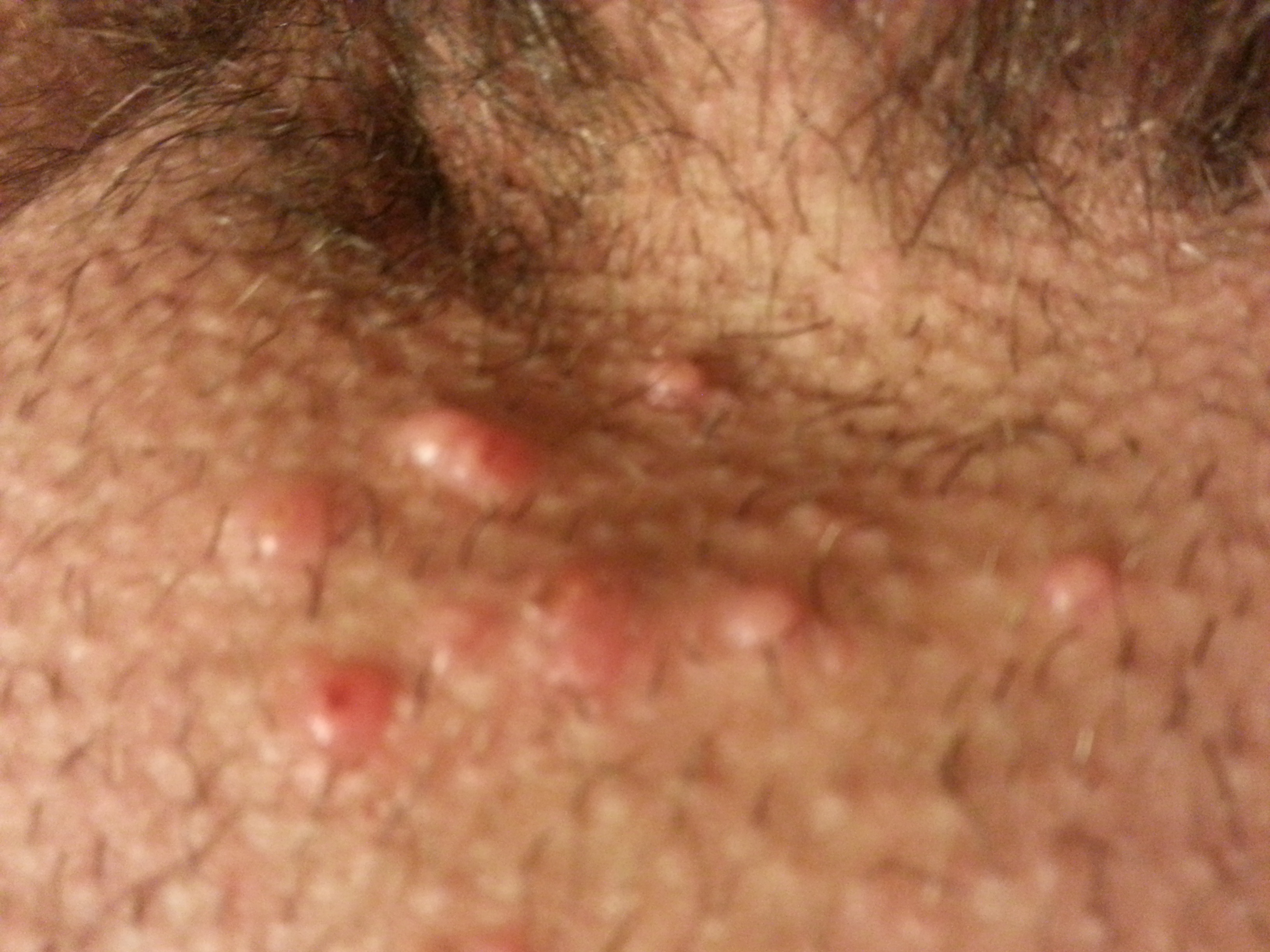 Ringworm Pictures: Rash, Skin Infections, Itching, Home ...