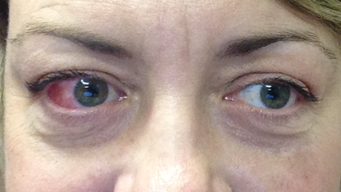 Eyes from front just now