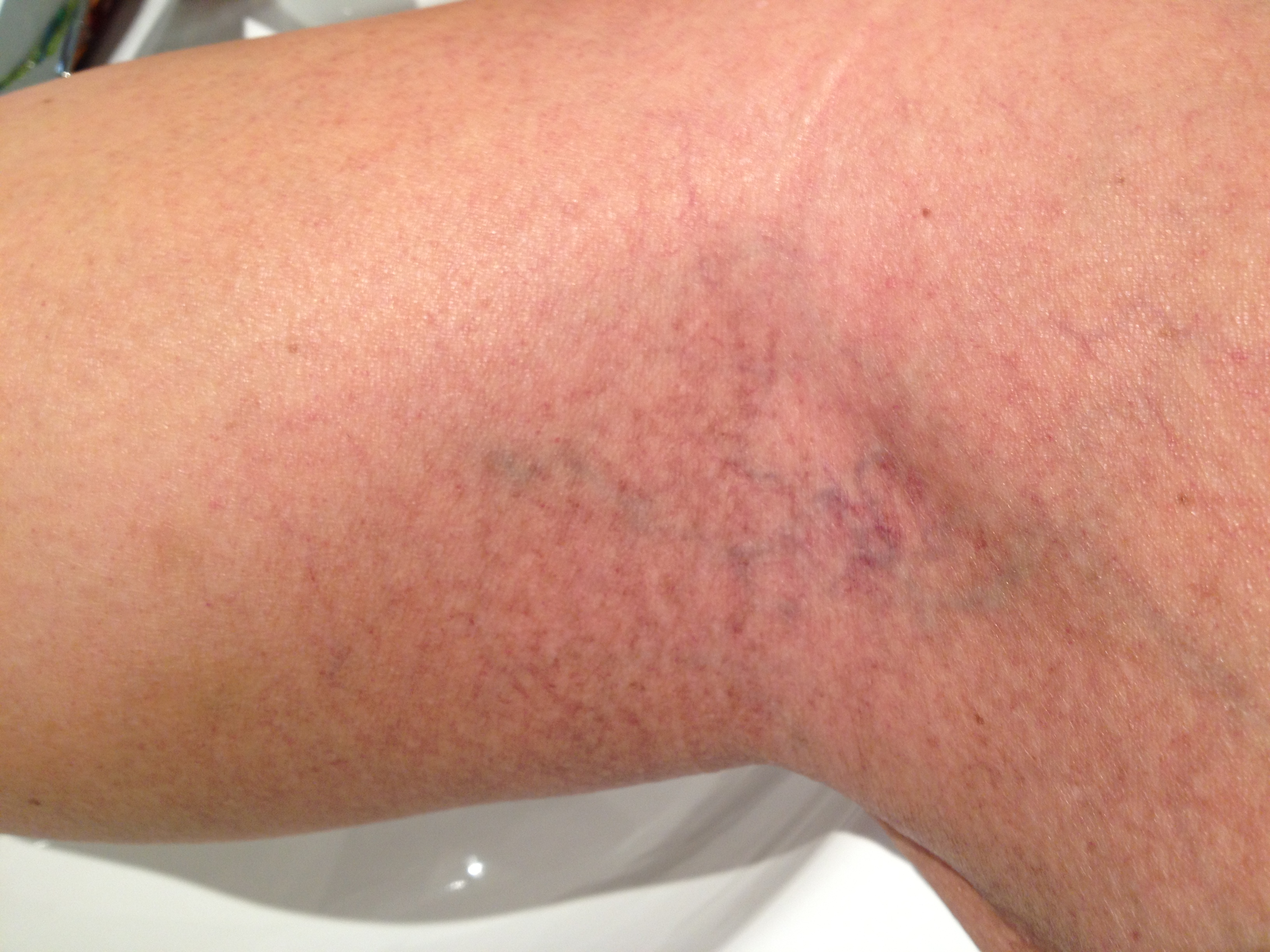 Bruises on Back of Calf http://www.justanswer.com/health/6ol65-year-ago-large-patches-looked-increased.html