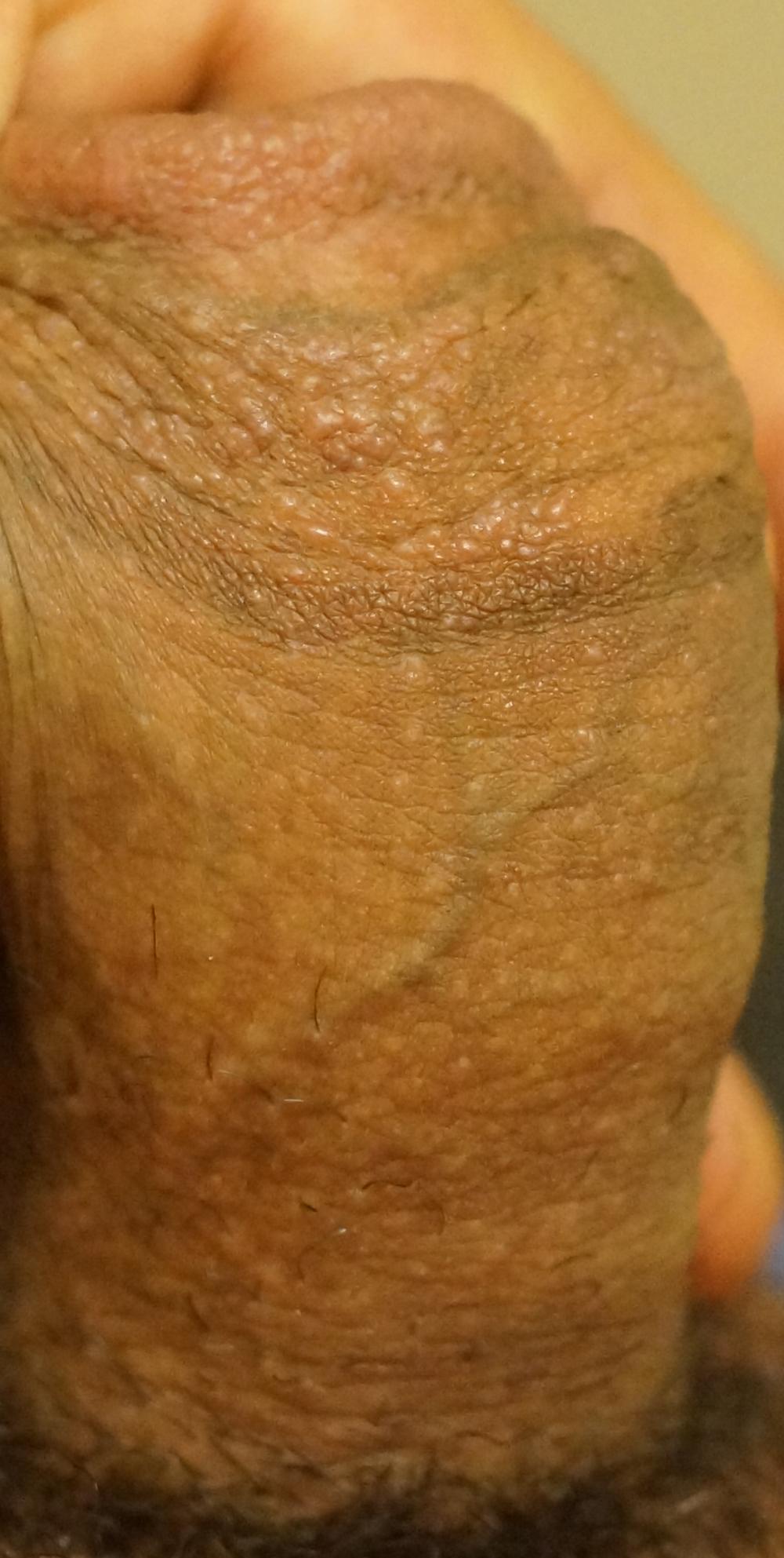 Erotic Pix Teen swinger tube