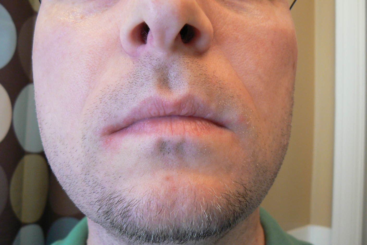 Corner Of Mouth Rash