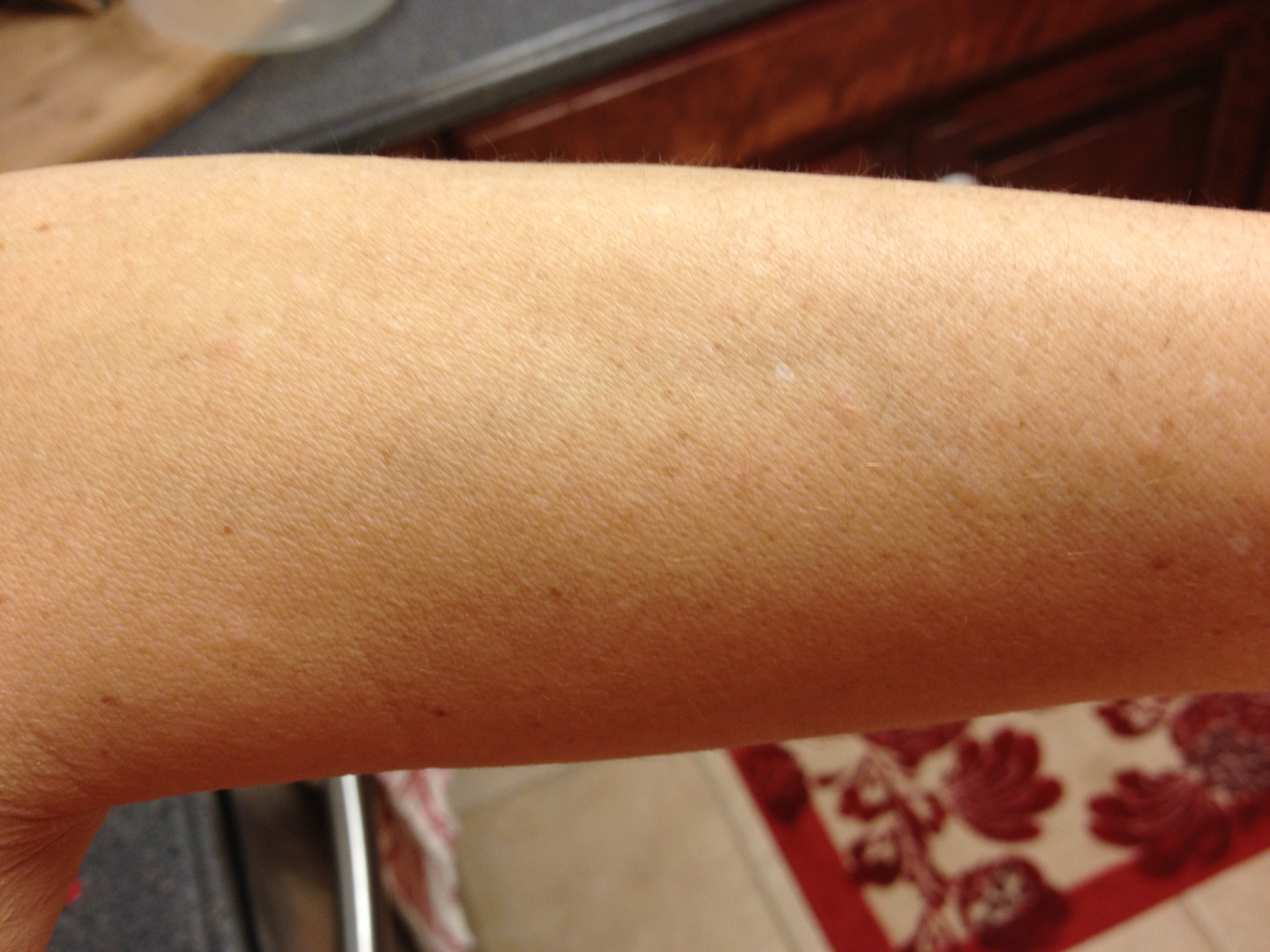 red rash after taking prednisone