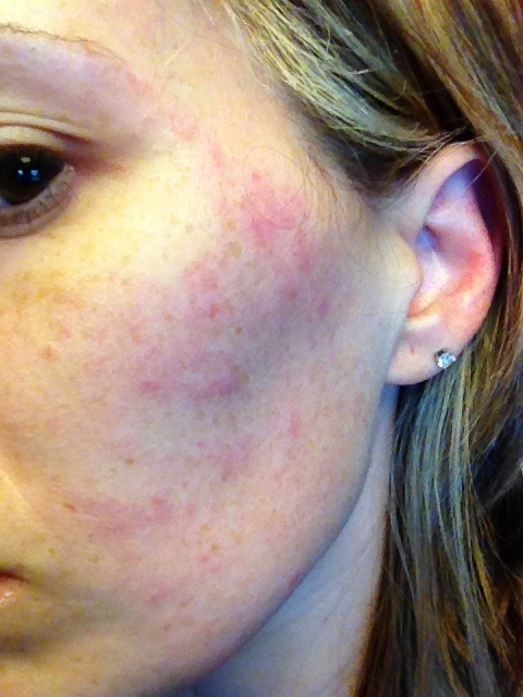 Can Anxiety Cause Red Blotches on Your Skin? - Calm Clinic