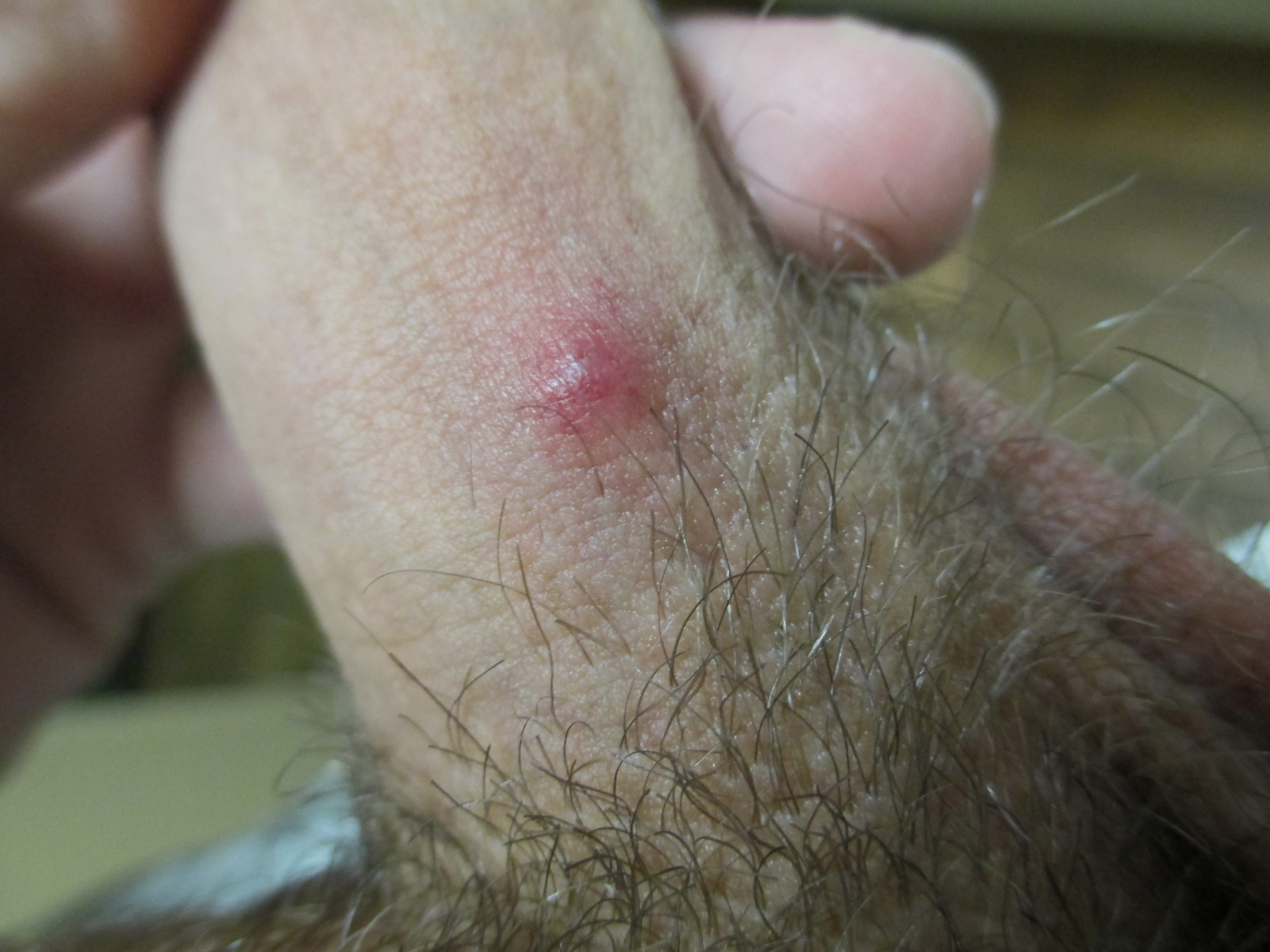 follicle on penis