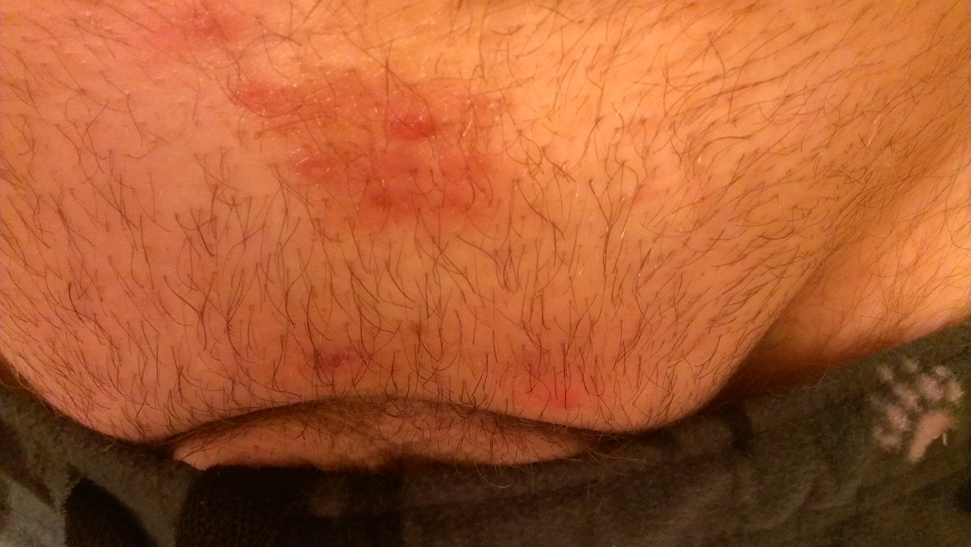 WTF are these rashes below my belly button/above my crotch ...