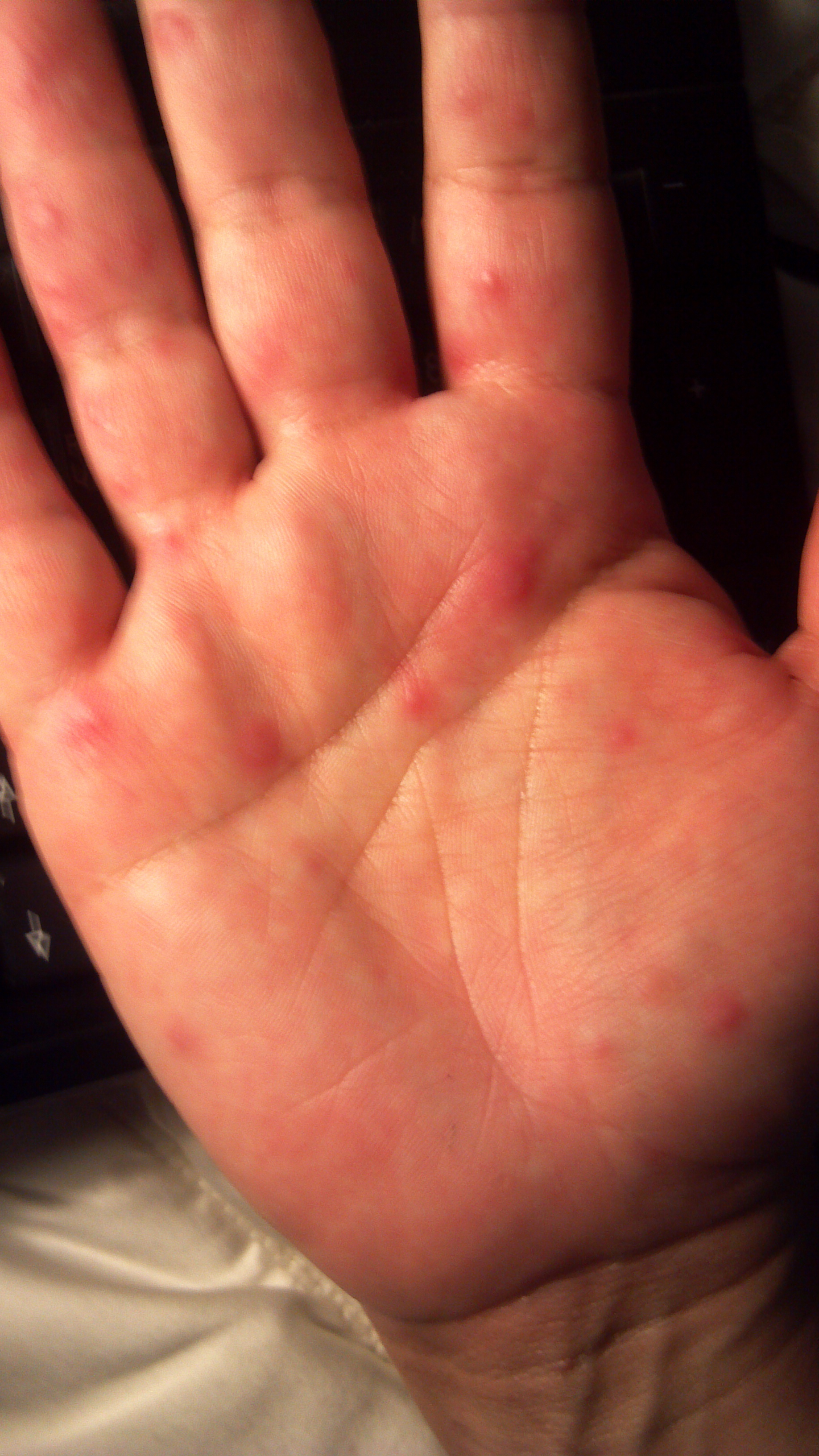 red rashes on hands