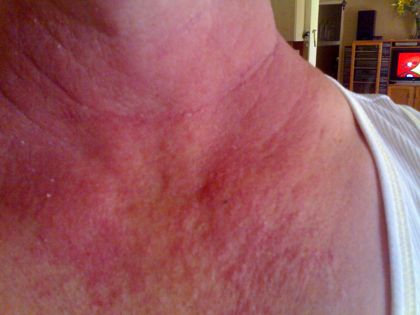 Doctor insights on: Red Blotches On Neck And Chest - HealthTap