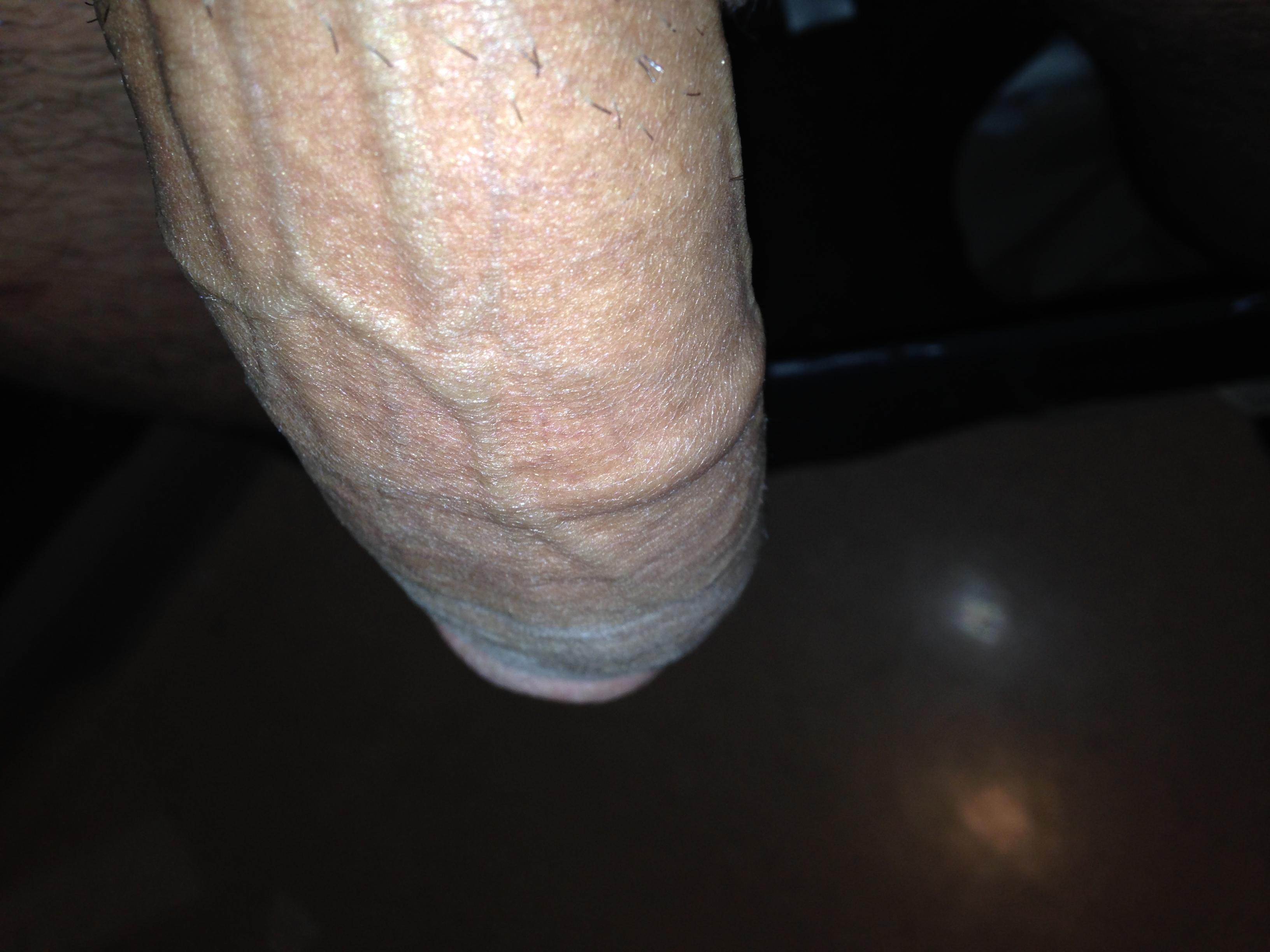 Bulge In Penis 18