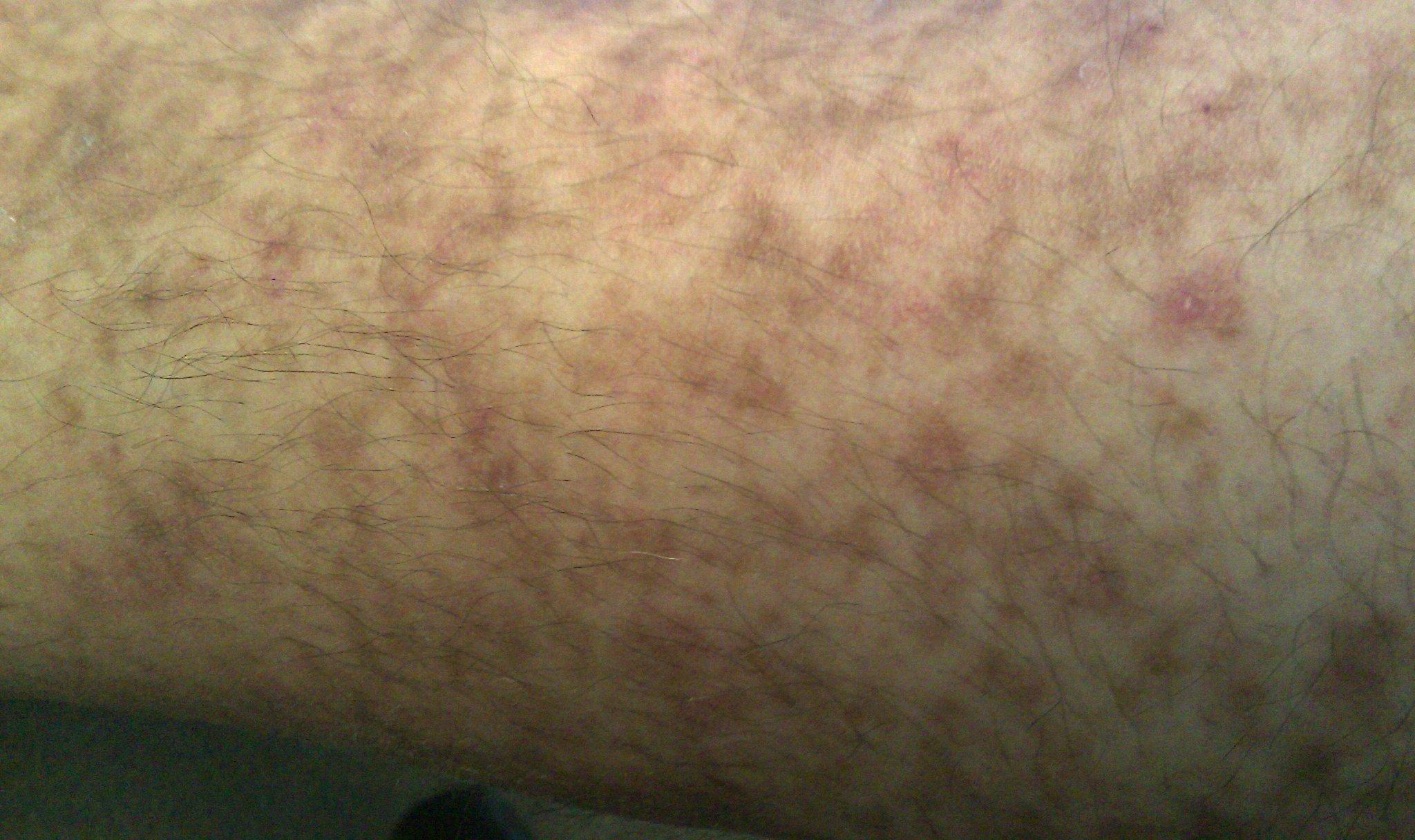 Right Leg spots