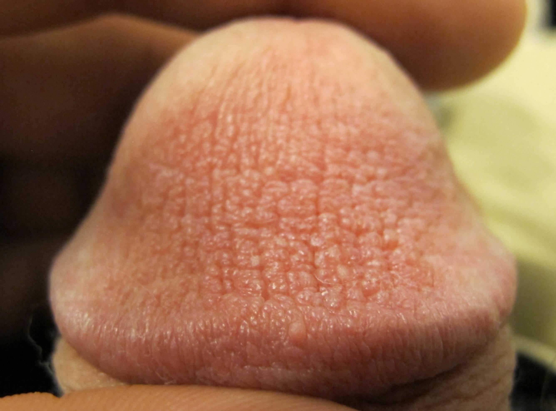 SEXY anal genital wart slut getting all