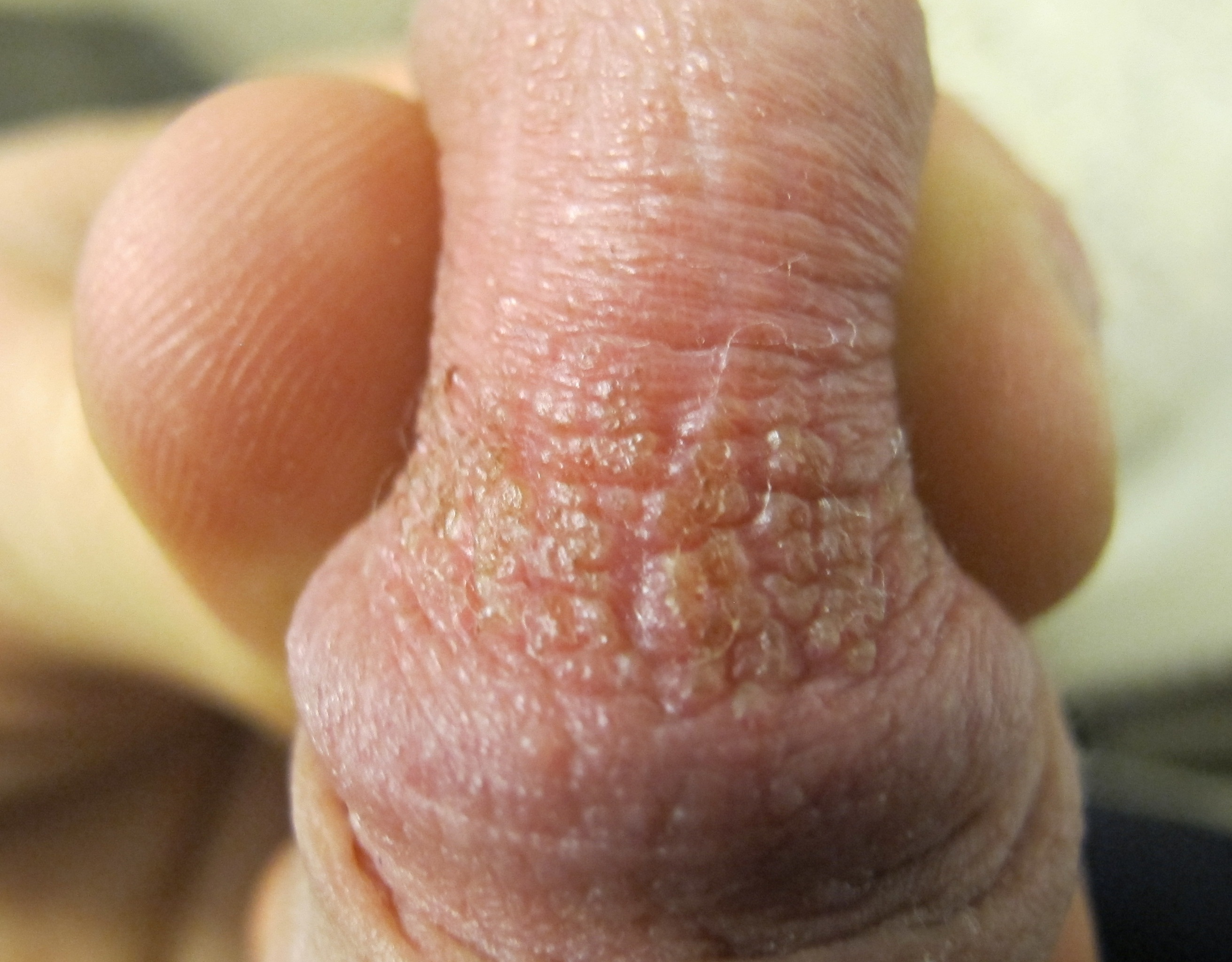itching penis after masturbation