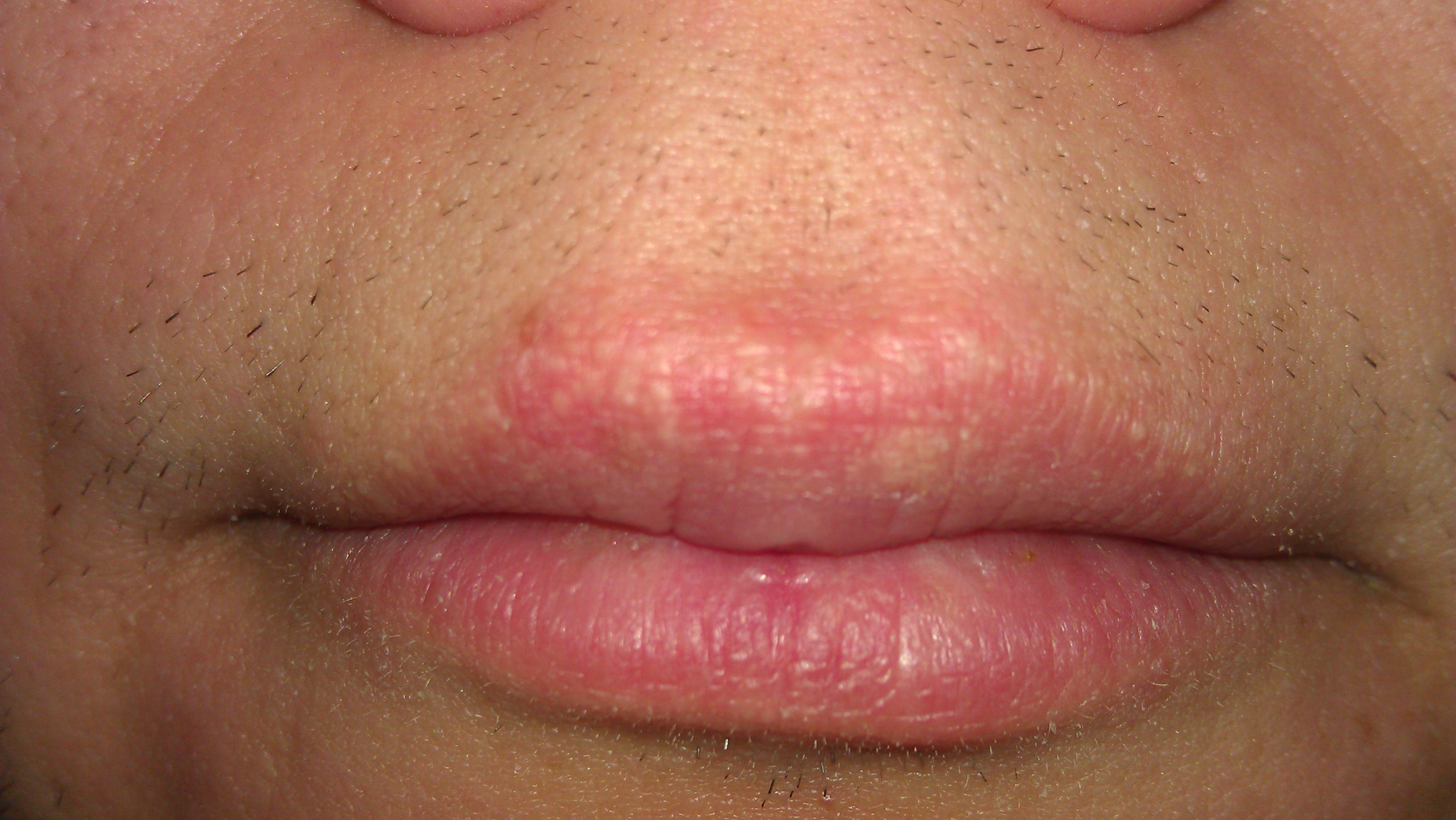 Herpes Corner Lips Here are some pictures:
