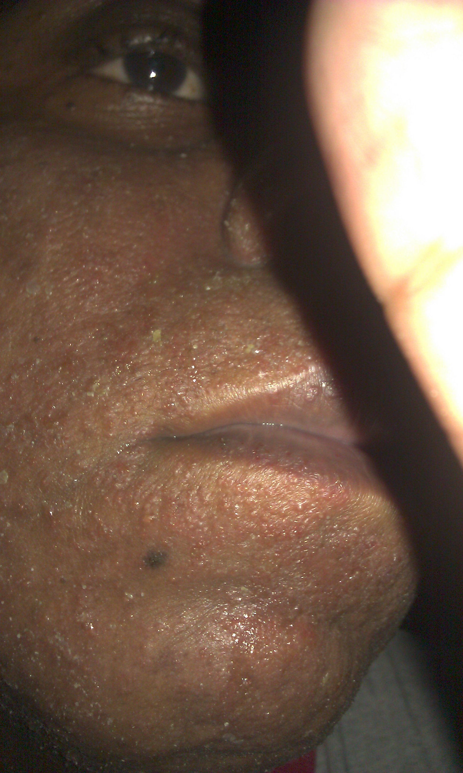 Facial blisters lesions