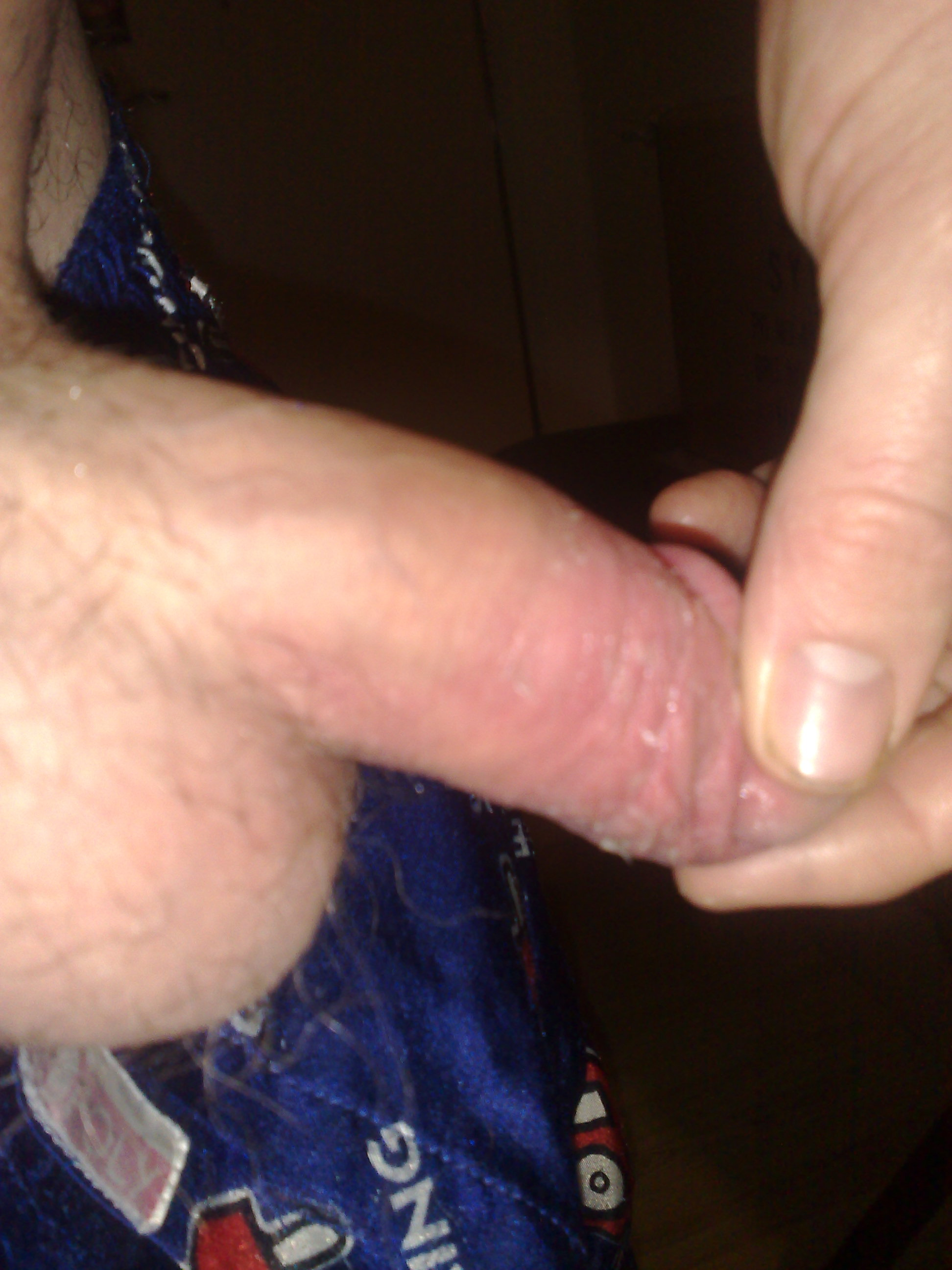 Sore Penis From Masturbation
