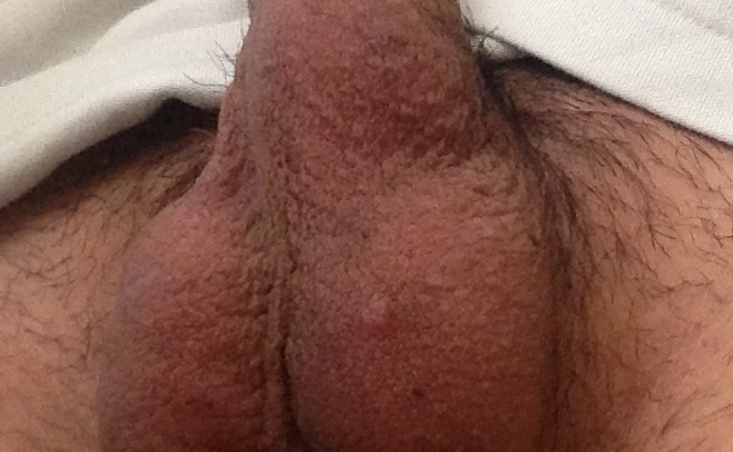 Swelling in upper labia minora - Womens Health - MedHelp