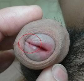 glans flaring stuck in vagina