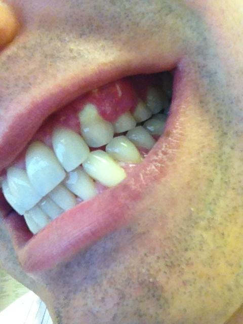 I had a gum graft on 2 upper teeth with Alloderm 2 weeks ago
