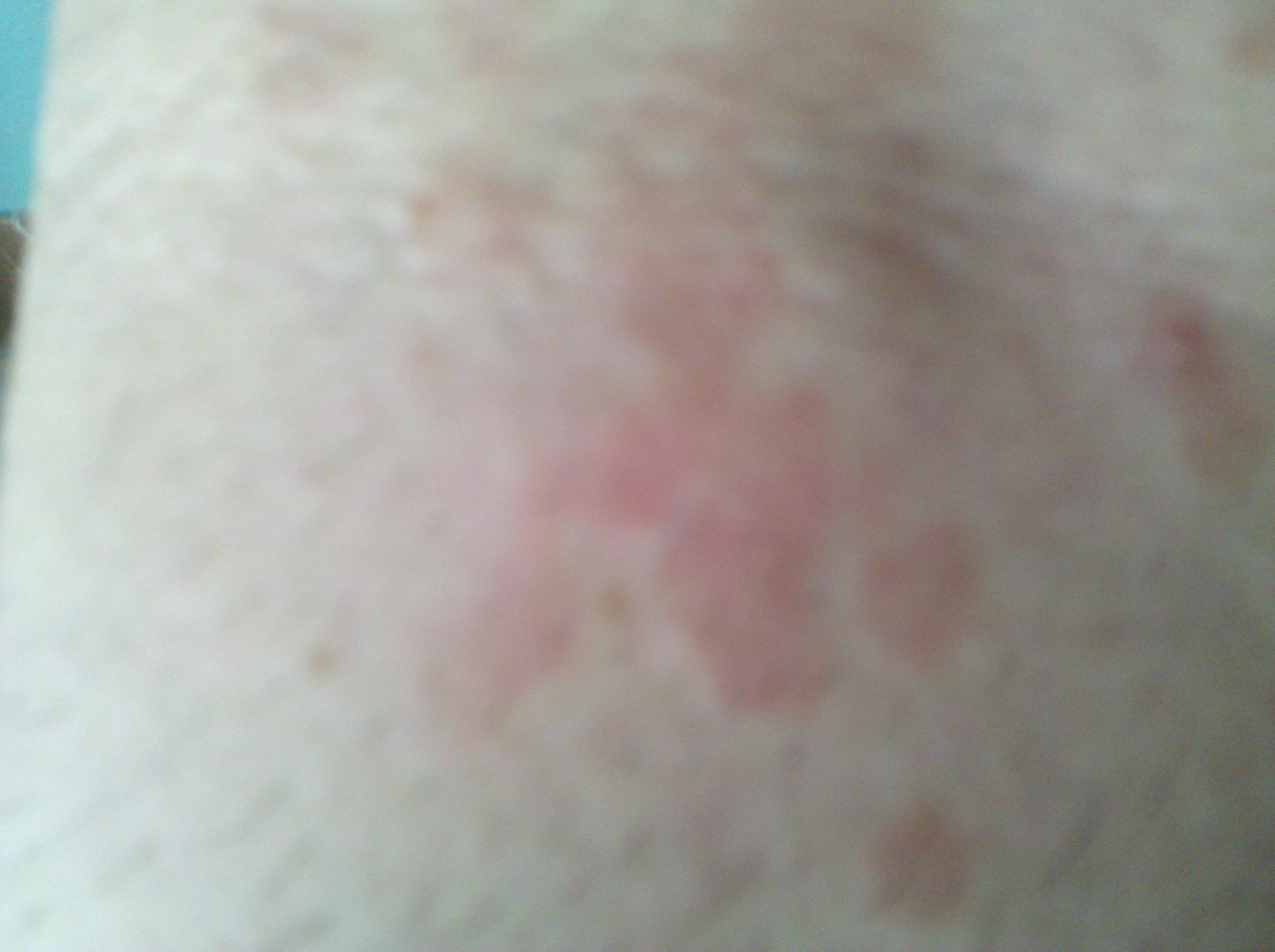 two red rashes inside elbow crease with bumps around rash ...