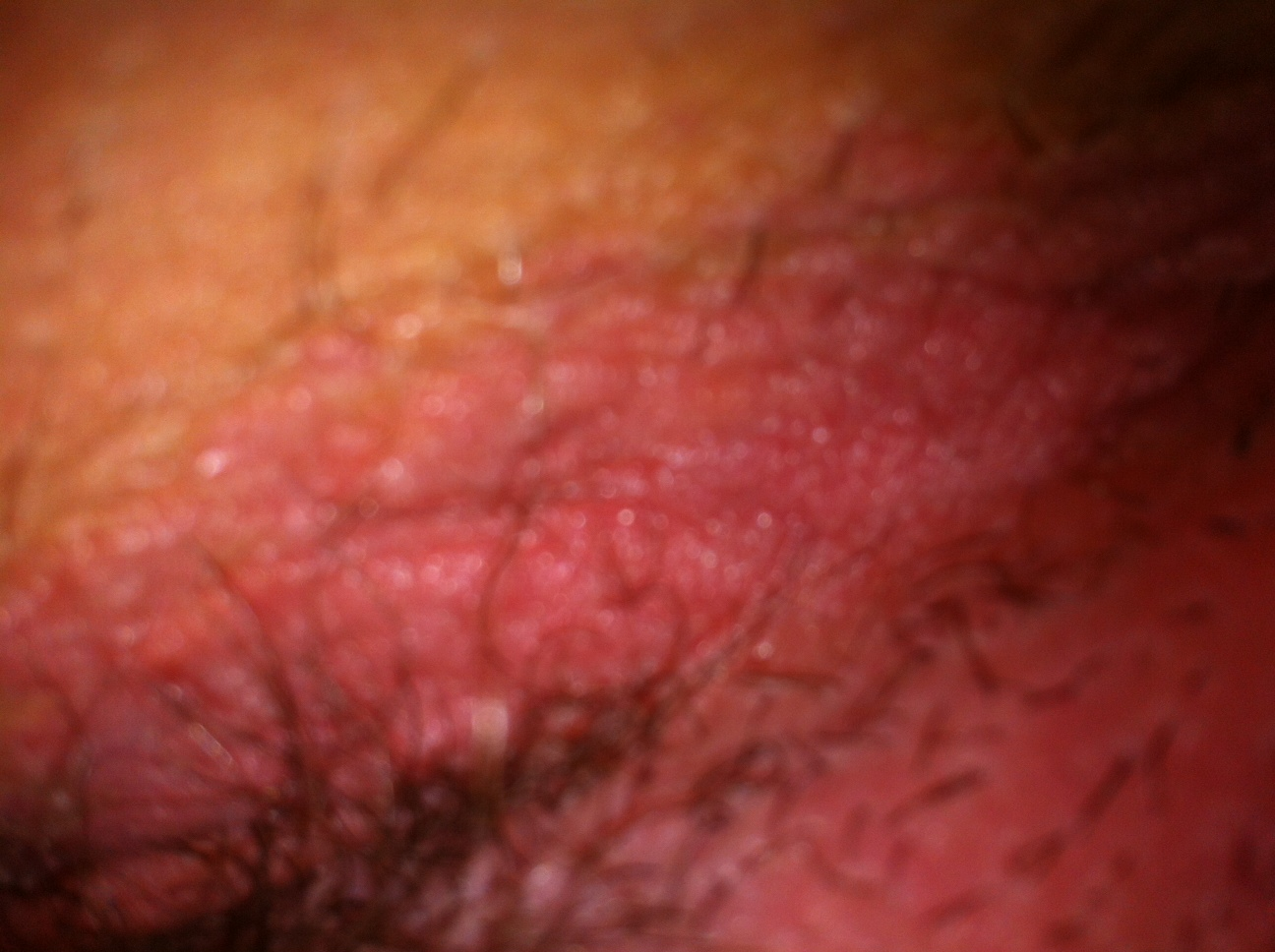 Genital rash: Common causes, pictures, and treatments ...