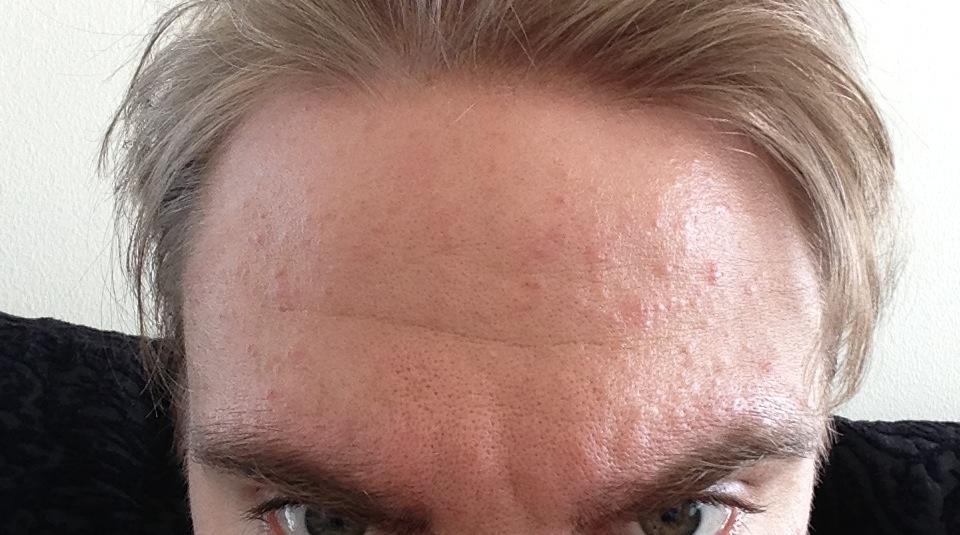 Pityrosporum Folliculitis Face - 164.0KB