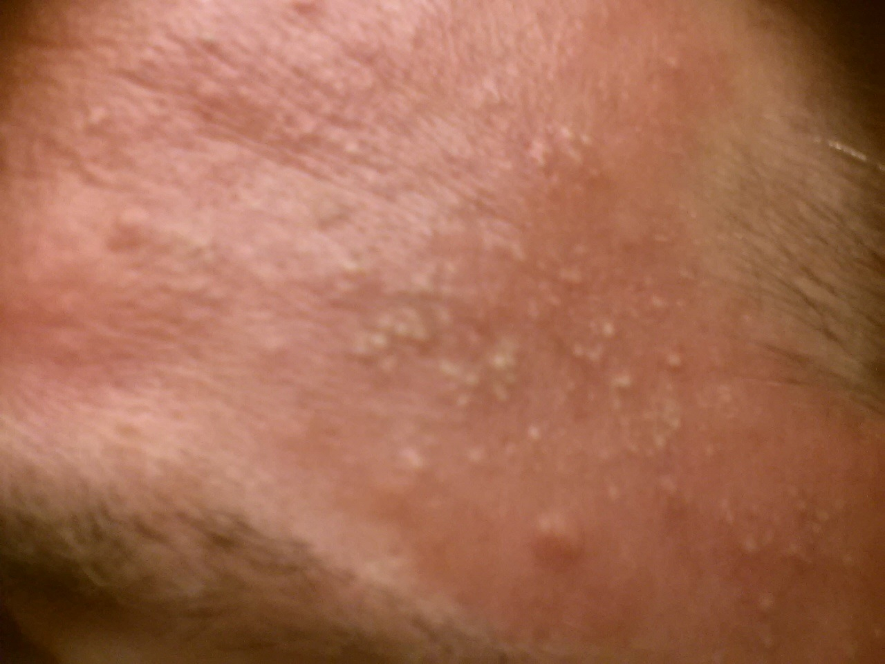 small raised bumps on forehead - pictures, photos