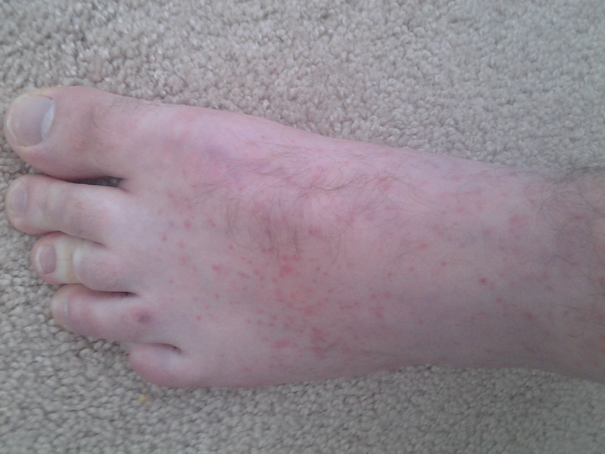 Red Spots on Foot Not Itchy Red Non Itchy no Bump Spots