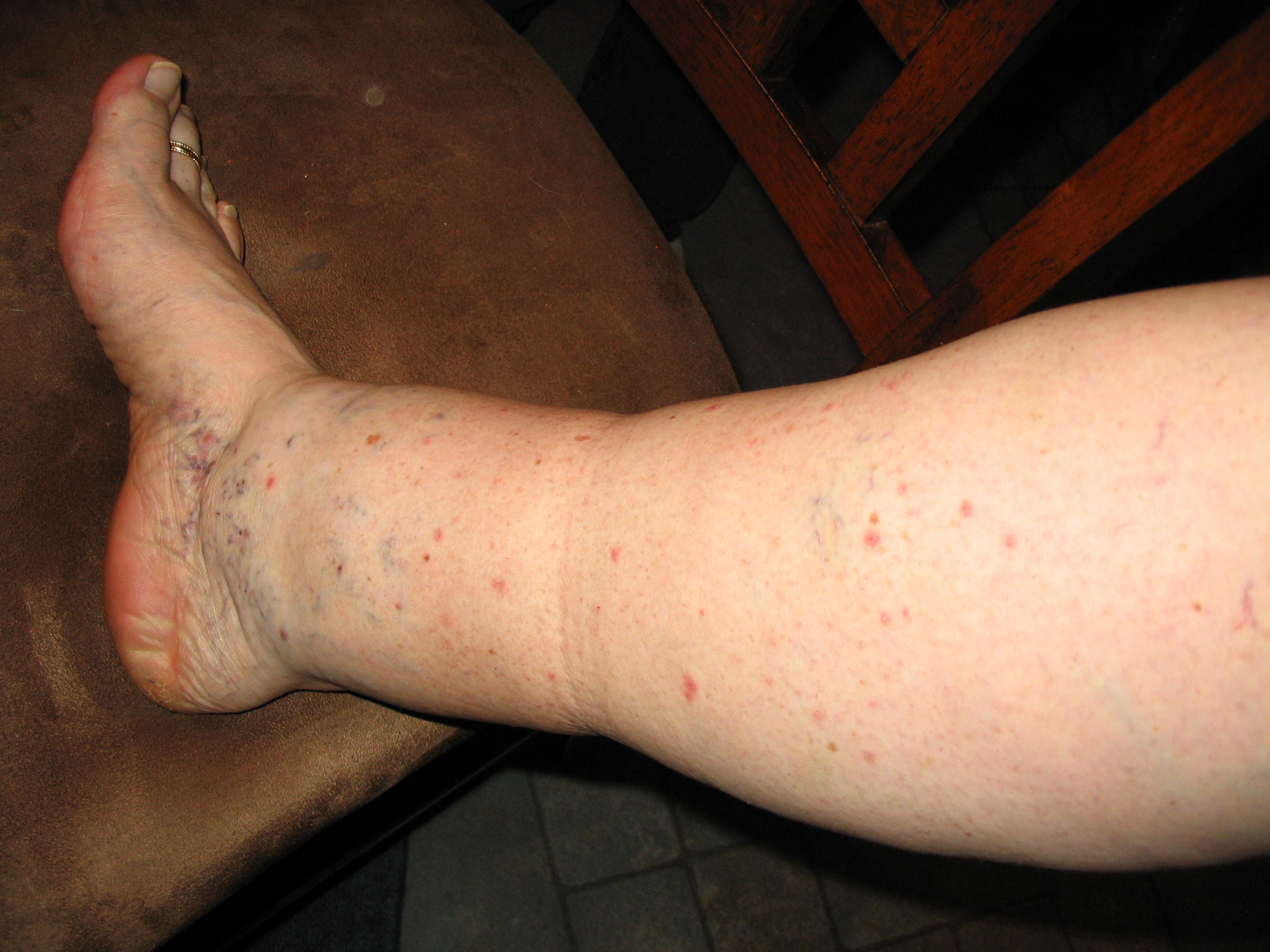 Red Bumps On Legs