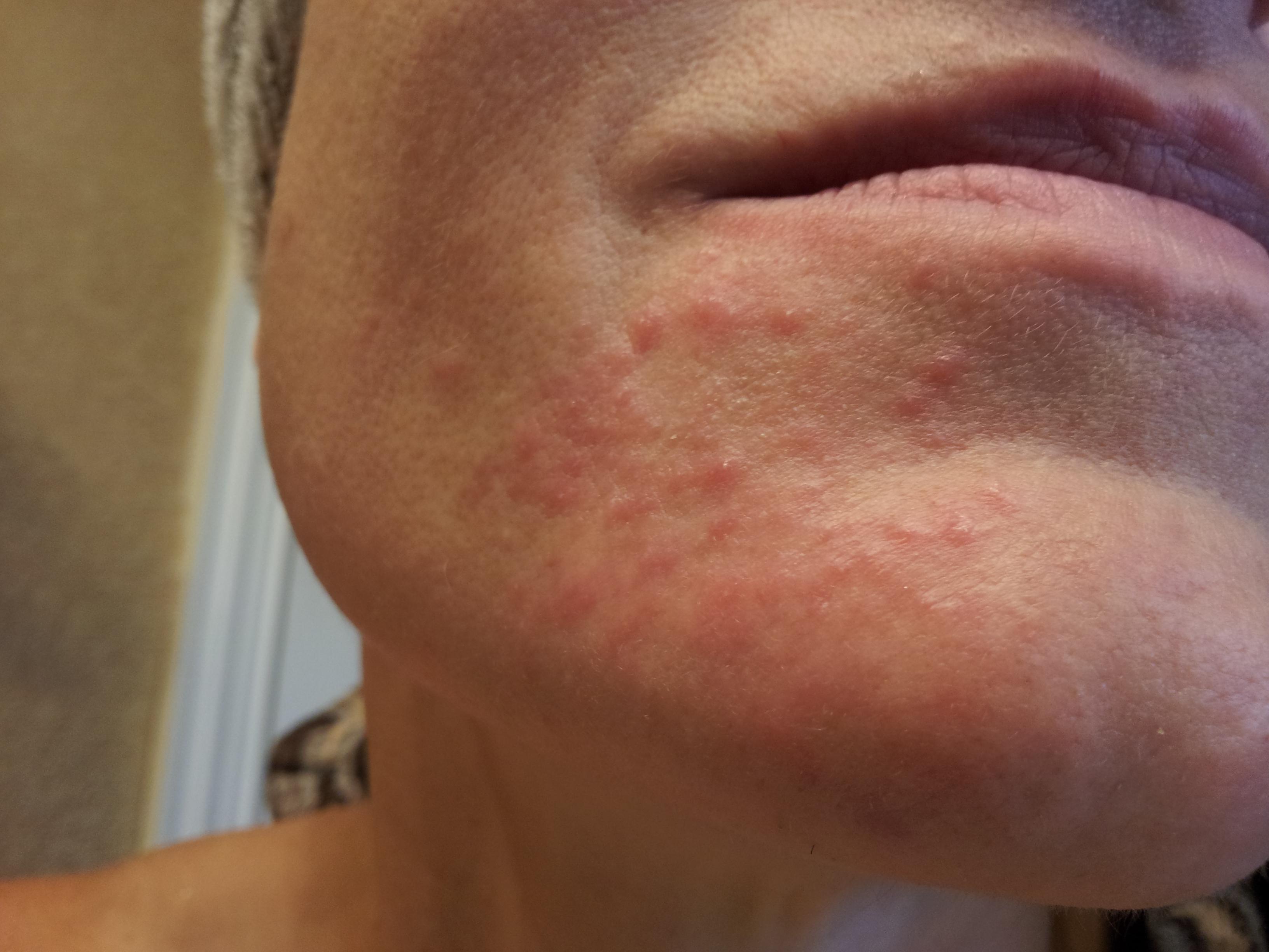 facial nerve impingement