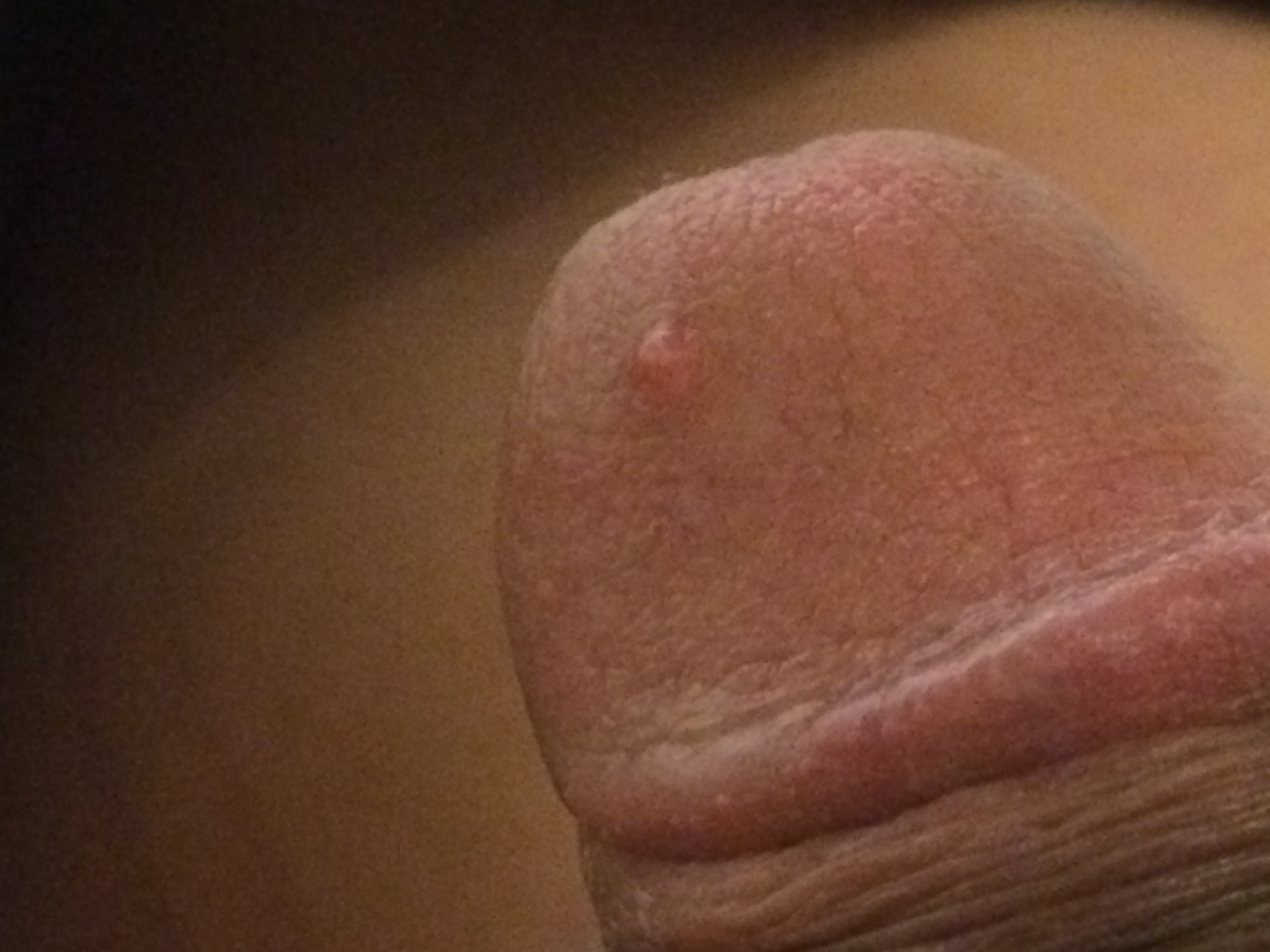 Red dots penis head the same