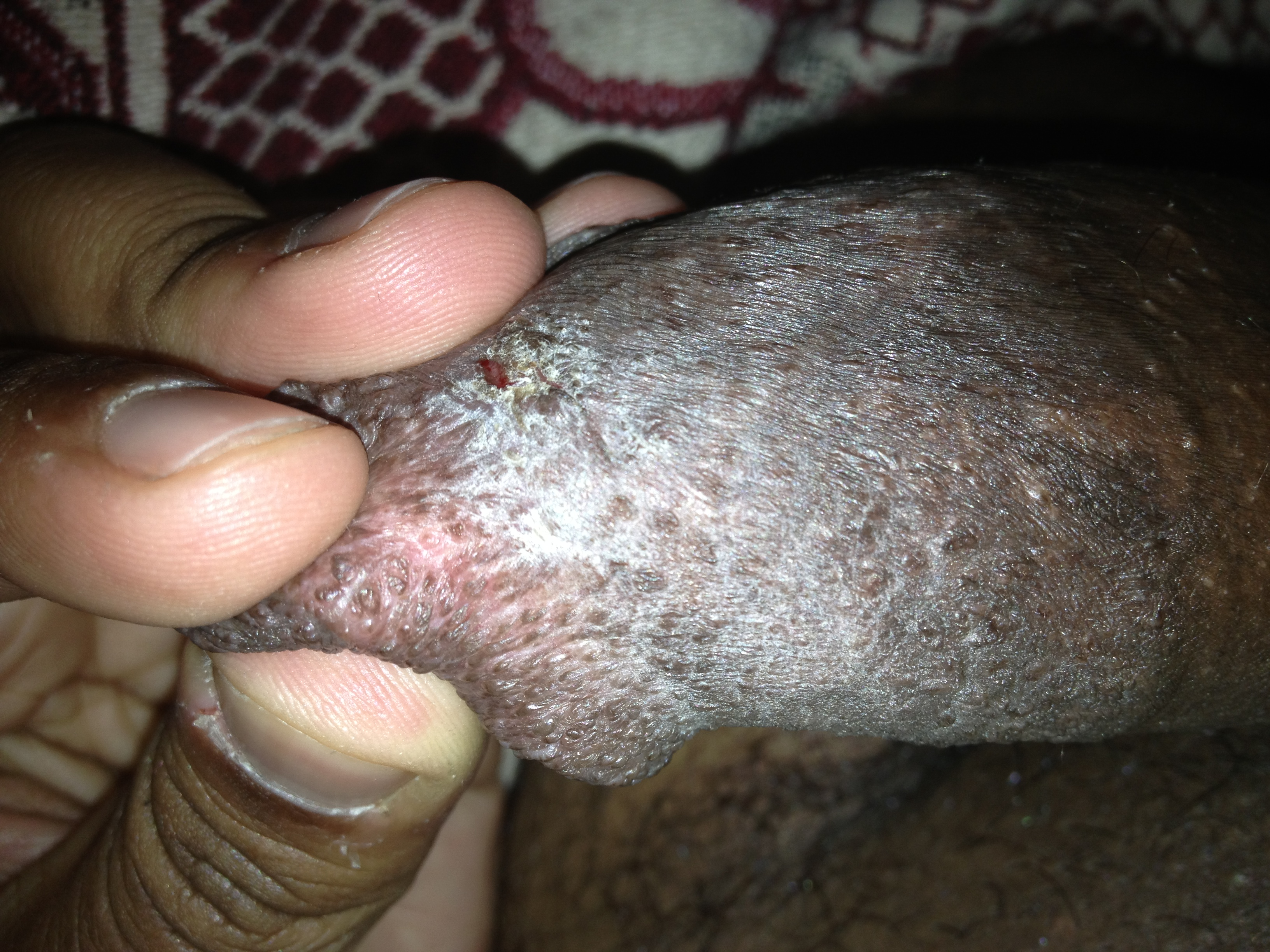 How to heal cut on tip of penis? - Urology - MedHelp