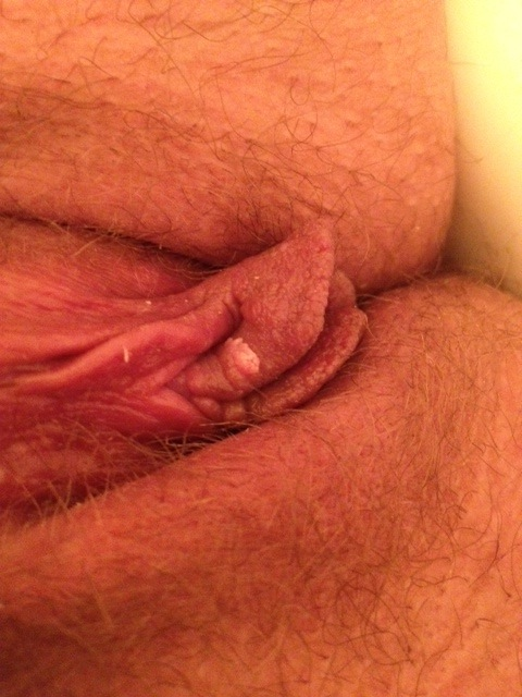 Bump on clitoris