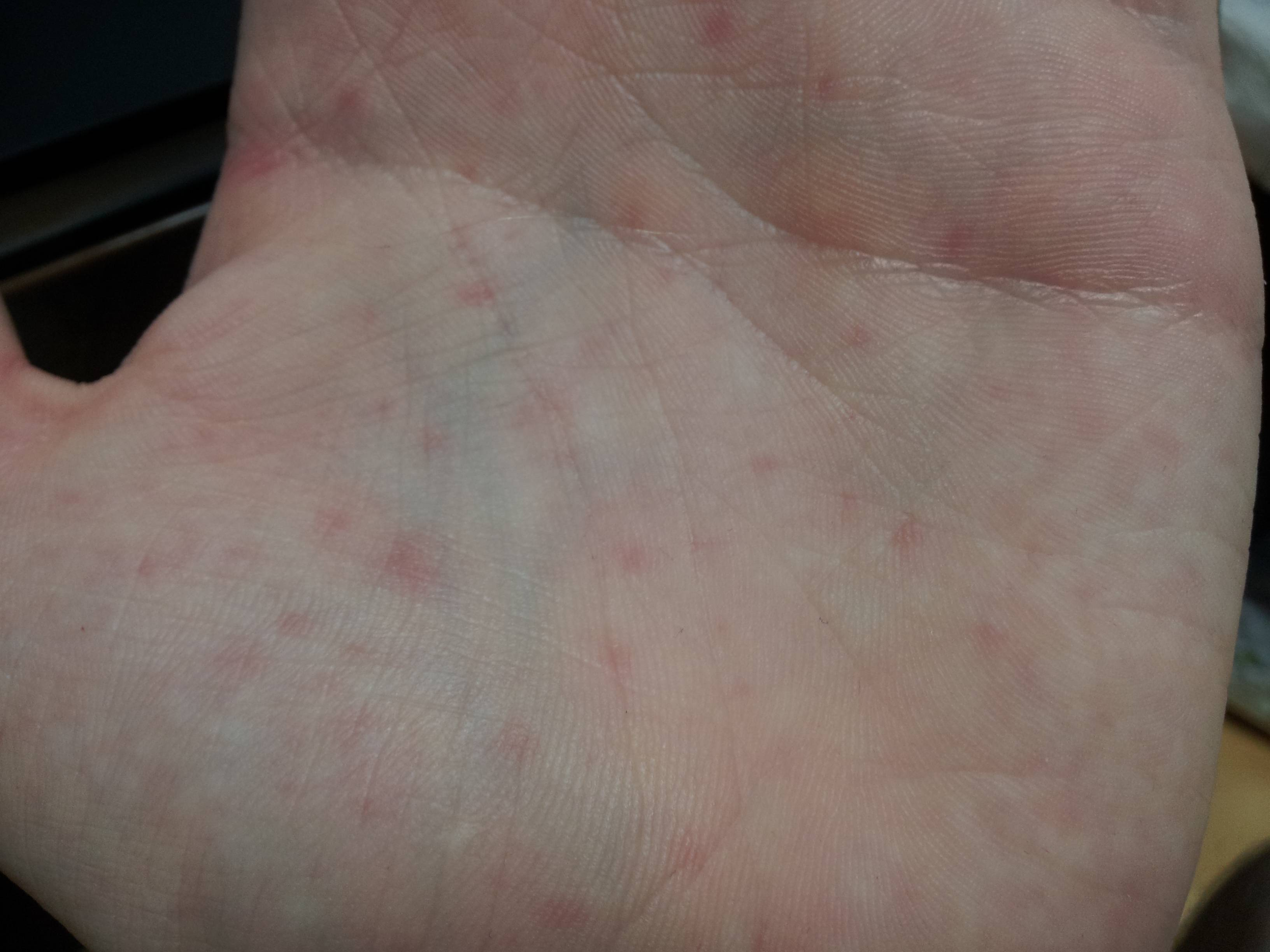 red spots on palms of hands