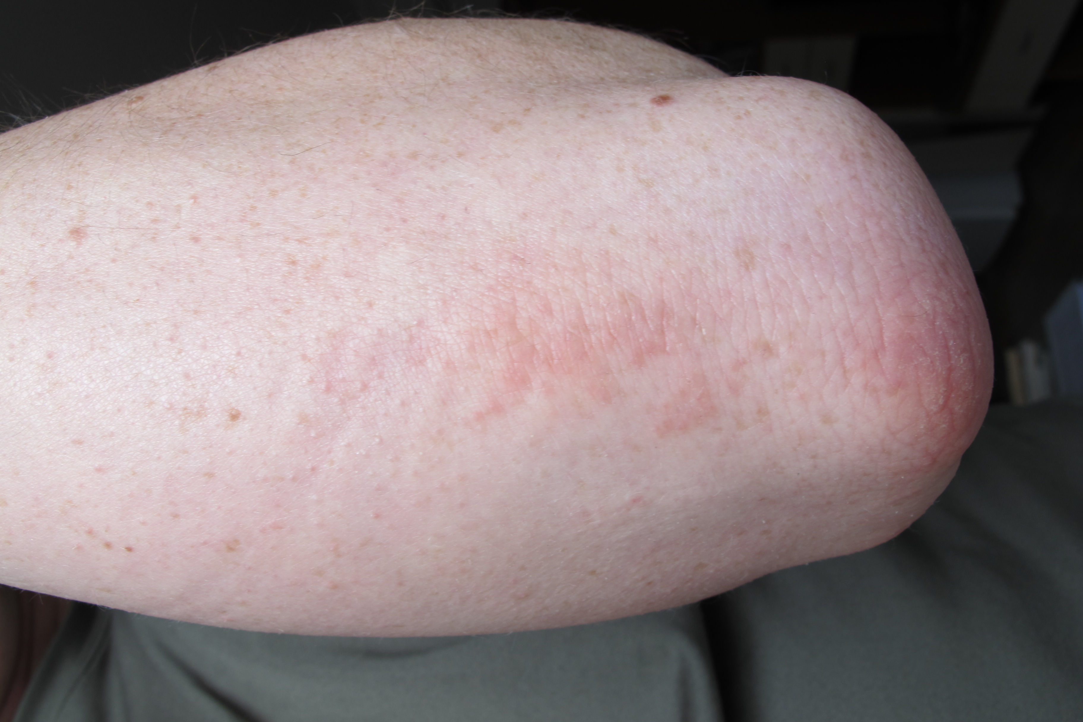 Rash on Elbow, Itchy, Pictures, Red Bumpy Rash Inside ...