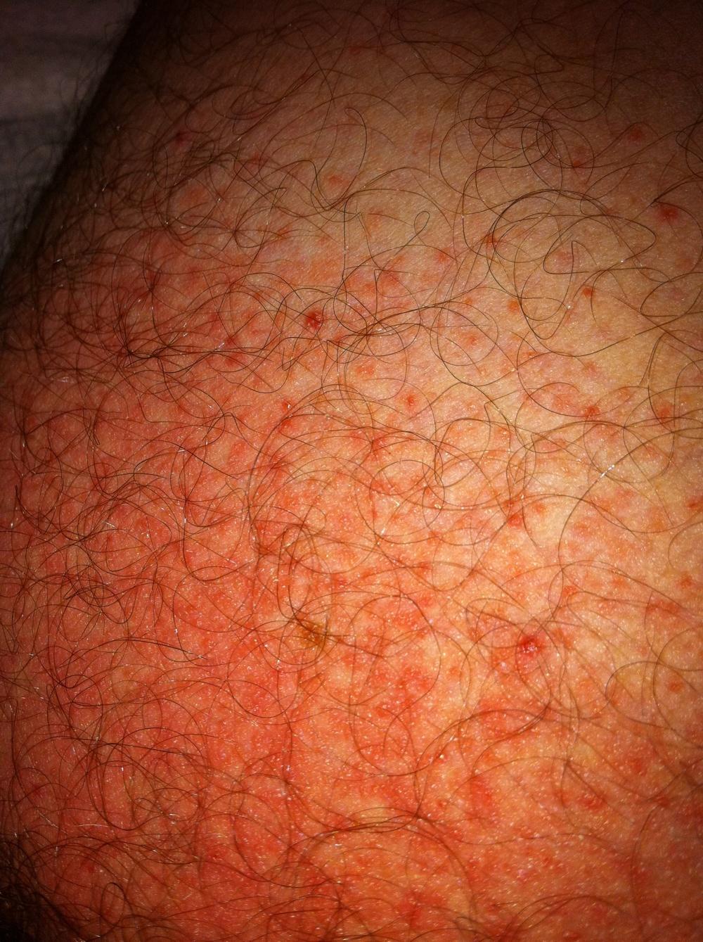 Penis And Scrotum Rash - Mens Conditions Forum -