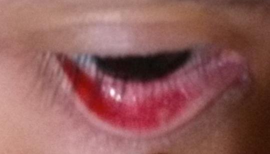 bump inside eyelid (problem solved)
