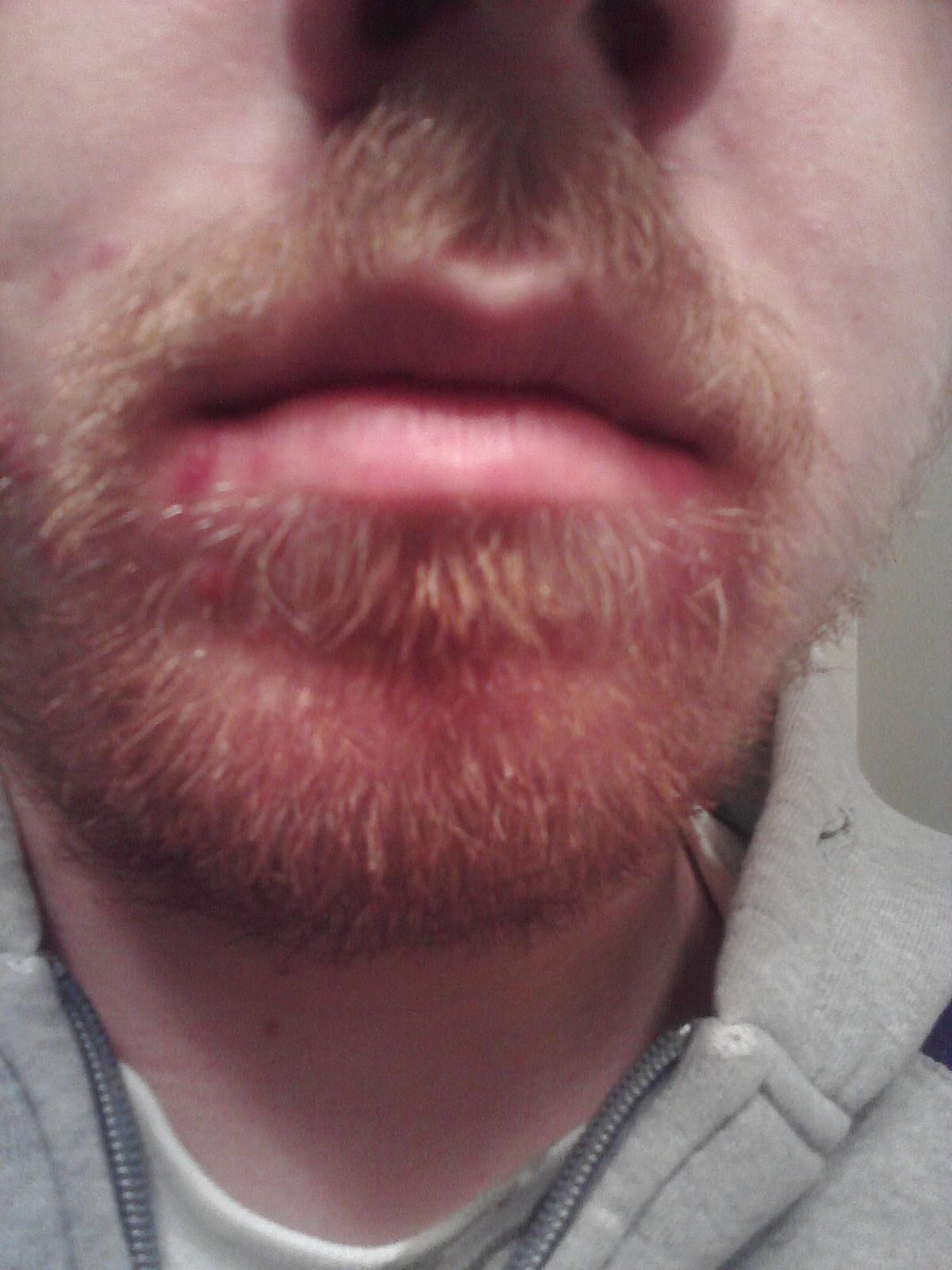 7 dark lip liner